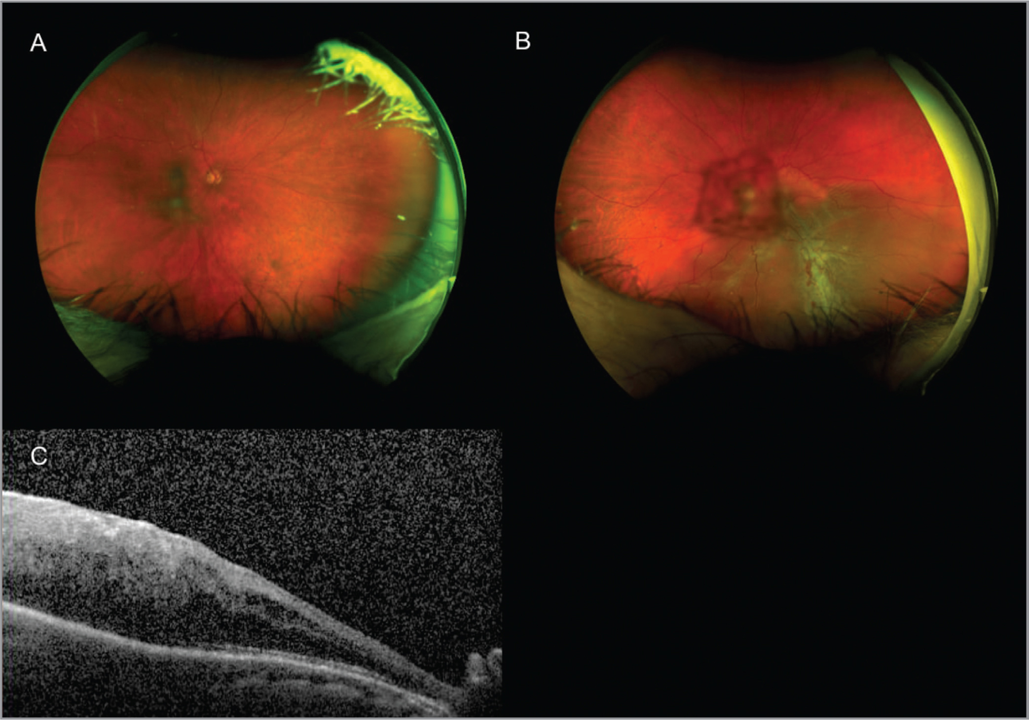 "Eleven months after autologous ""stem cell"" injections (ASCIs), the widefield fundus photo of the right eye (A) shows persistence of the epiretinal membrane (ERM), but no retinal detachment (RD). Widefield fundus photo of the left eye (B) shows an inferior macula-involving RD with proliferative vitreoretinopathy. Optical coherence tomography (OCT) of the right eye (C) shows worsening of the ERM. An OCT of the left eye was attempted but a satisfactory image could not be captured due to the bullous nature of the RD."