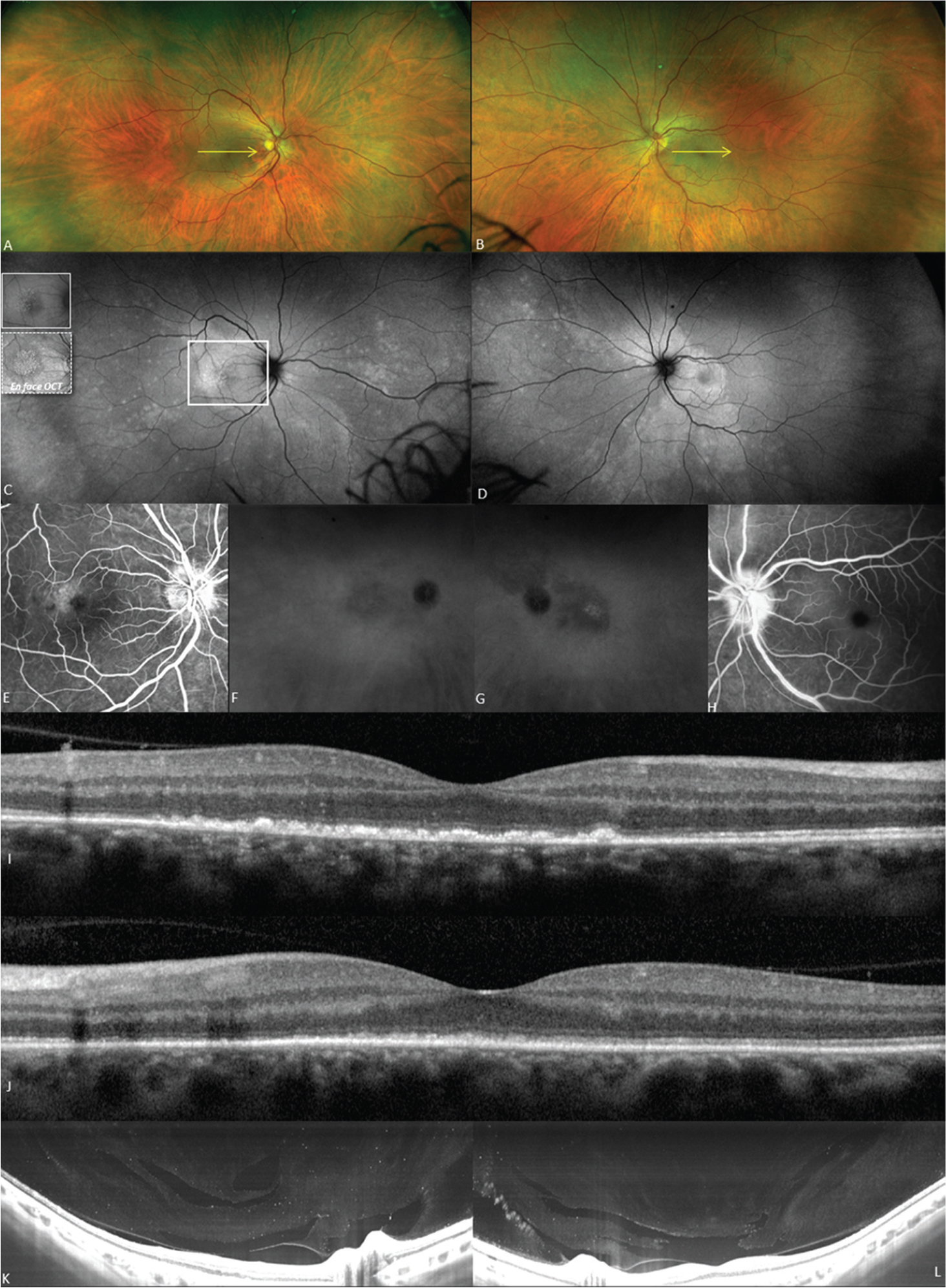 Initial presentation. (A, B) Ultra-widefield color fundus photography. (C, D) Ultra-widefield fundus autofluorescence reveals placoid lesions bilaterally surrounded by hyperautofluorescence spots. In the right macula hyperautofluorescent nodules correlate with hyperreflective spots on en face optical coherence tomography (OCT) of the outer retina (C, inset). (E, H) Fluorescein angiography reveals late staining of the macular region of the right eye and of the optic discs bilaterally. (F, G) Late-phase indocyanine green angiography reveals macular hypocyanescence. (I) OCT of the right eye reveals ellipsoid zone disruption with retinal pigment epithelial clumping. (J) OCT of the left eye reveals ellipsoid zone disruption. The location of the spectral-domain OCT B-scans correspond to the yellow arrows on the corresponding color fundus photographs. (K, L) Swept-source OCT with contrast adjustment reveals the presence of vitreous cells.