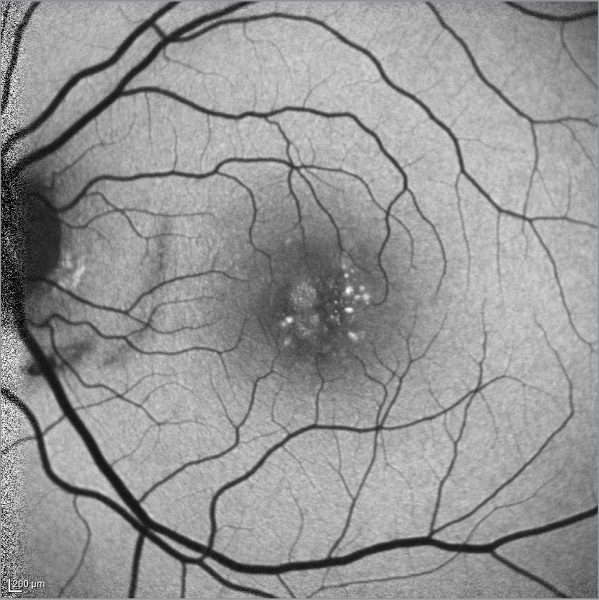 Fundus autofluorescence of the left eye at presentation shows areas of central hyperautofluorescence corresponding to the lamellar macular hole and focal areas of elongated photoreceptor outer segments overlying a nonconforming focal choroidal excavation. There is a crescentic area of hypoautofluorescence nasally corresponding to an area of choroidal rupture.