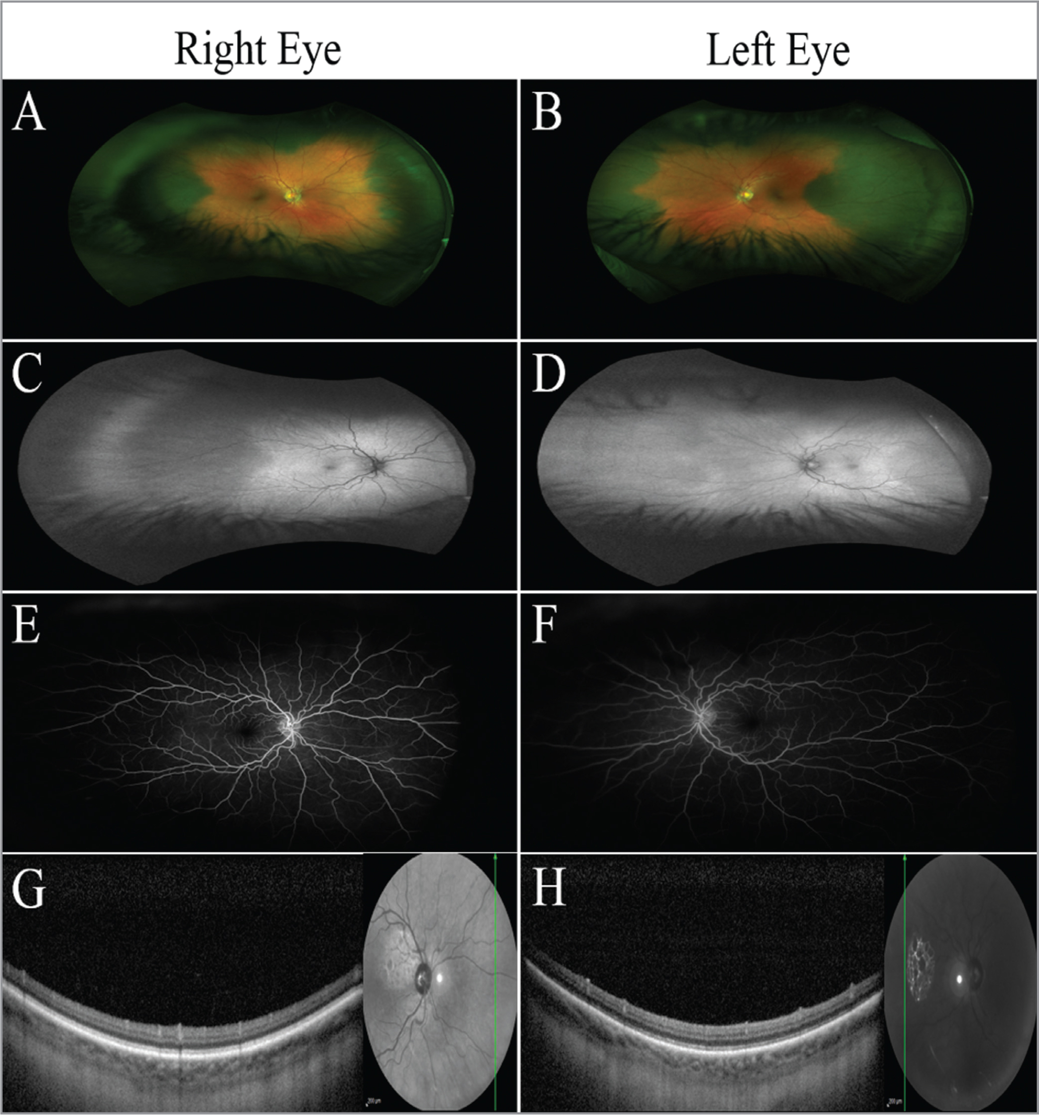 Color fundus photographs demonstrated diffuse bilateral choroidal hyperpigmentation in an annular pattern (A, B). Fundus autofluorescence imaging demonstrated a lack of retinal autofluorescence (C, D). Fluorescein angiograms displayed normal vessel patterns without hyperfluorescence in pigmented regions (E, F). Optical coherence tomography of the peripheral retina showed normal choroidal thickness and architecture in both affected and unaffected regions. The overlying retina appeared normal, and there is no subretinal fluid (G, H).