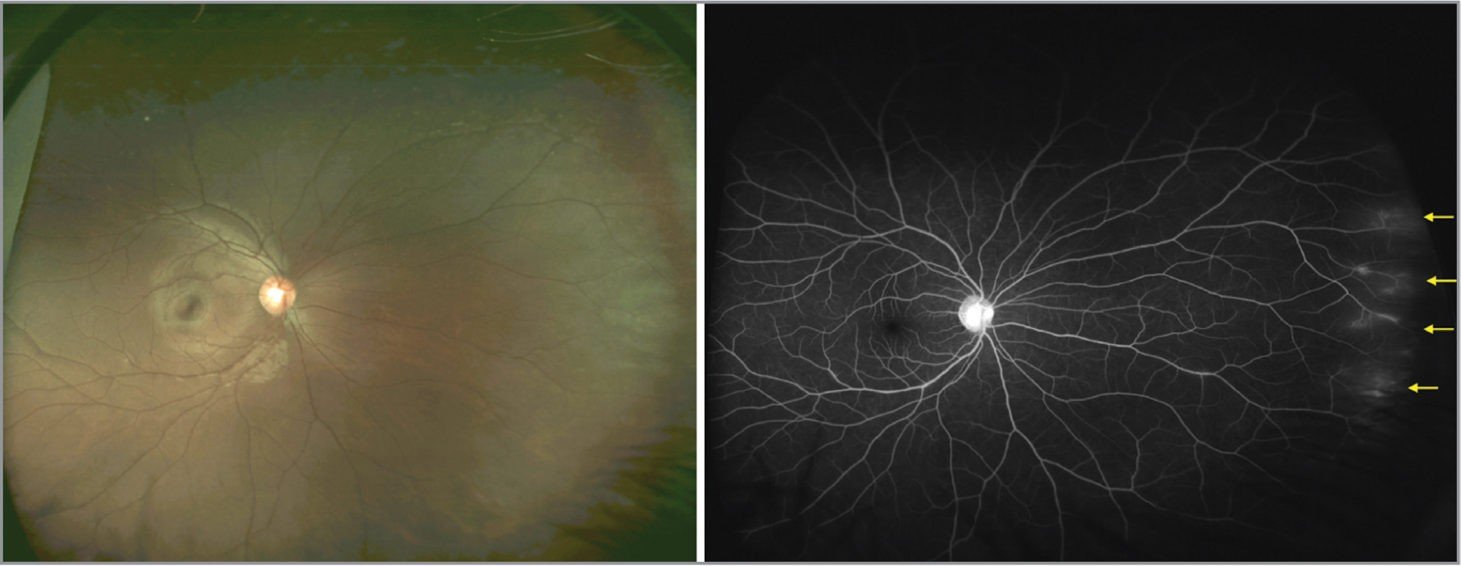 Fundus image (left) and widefield fluorescein angiography (right) of the fellow unaffected eye in a patient with Coat's disease demonstrating peripheral vascular leakage (yellow arrows).