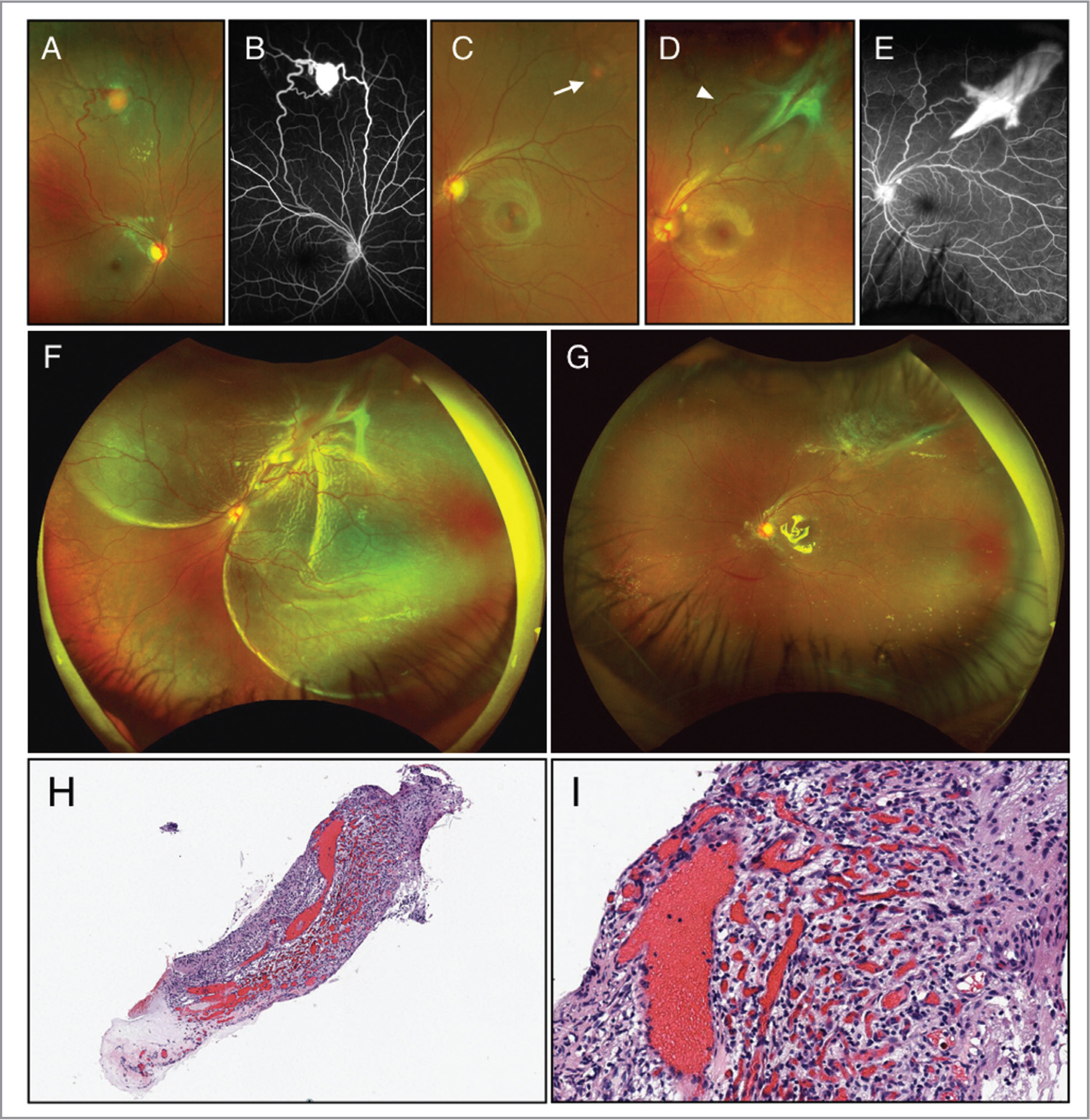 (A) Ultra-widefield imaging of the right fundus demonstrating the peripheral retinal capillary hemangioblastoma (RCH) located on the superior quadrant. (B) Fluorescein angiography depicting a marked filling pattern between a feeder artery and draining vein. (C) A small RCH located on the superotemporal quadrant in the left eye (white arrow). (D, E) Enlargement of the angioma in the left eye over 7 months with associated vitreous condensation and contraction. Note the increased vessel tortuosity on superior quadrant (arrowhead). (F) Combined tractional, rhegmatogenous, and exudative retinal detachment in the affected eye. (G) Retina was successfully attached after pars plana vitrectomy surgery combined with scleral buckling and silicone oil injection. (H, I) Histopathologic features of the retinal hemangioblastoma on hematoxylin and eosin stain, which is composed of vacuolated stromal cells and blood vessels. There are elements of chronic stromal inflammation (H, ×10; I, ×20).