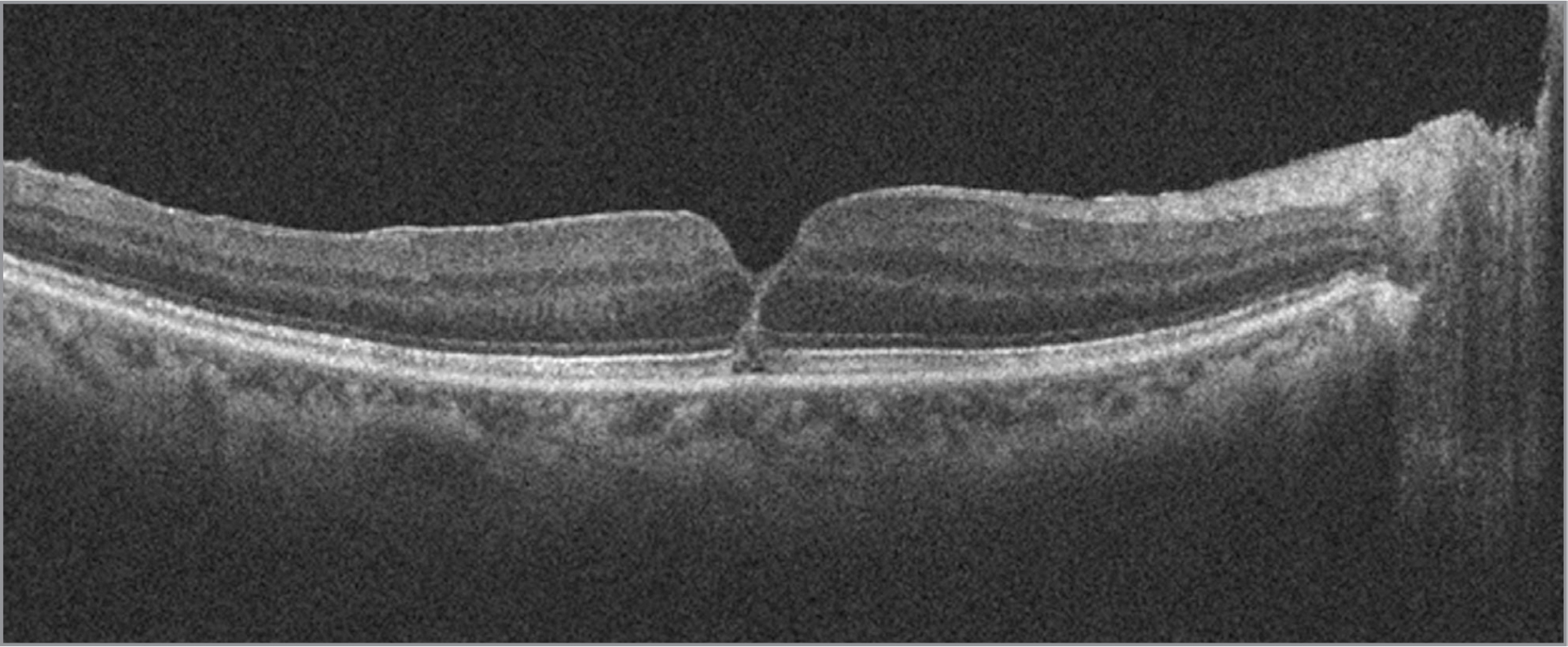 Spectral-domain optical coherence tomography from 2 weeks after surgery demonstrating closure of macular hole.