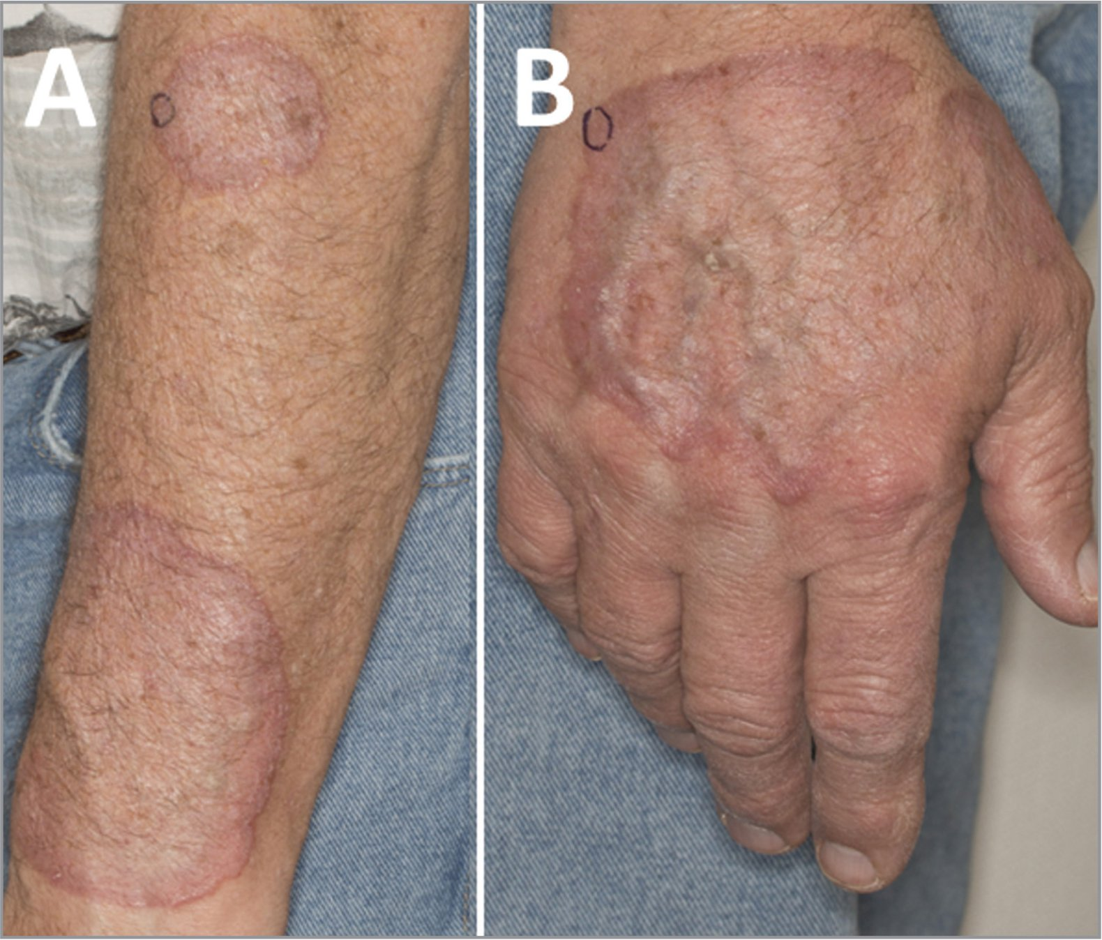 Color photos of the patient's left forearm (A) and right hand (B) show characteristic ring-shaped erythematous plaques, consistent with cutaneous granuloma annulare. The areas circled in black were biopsied.