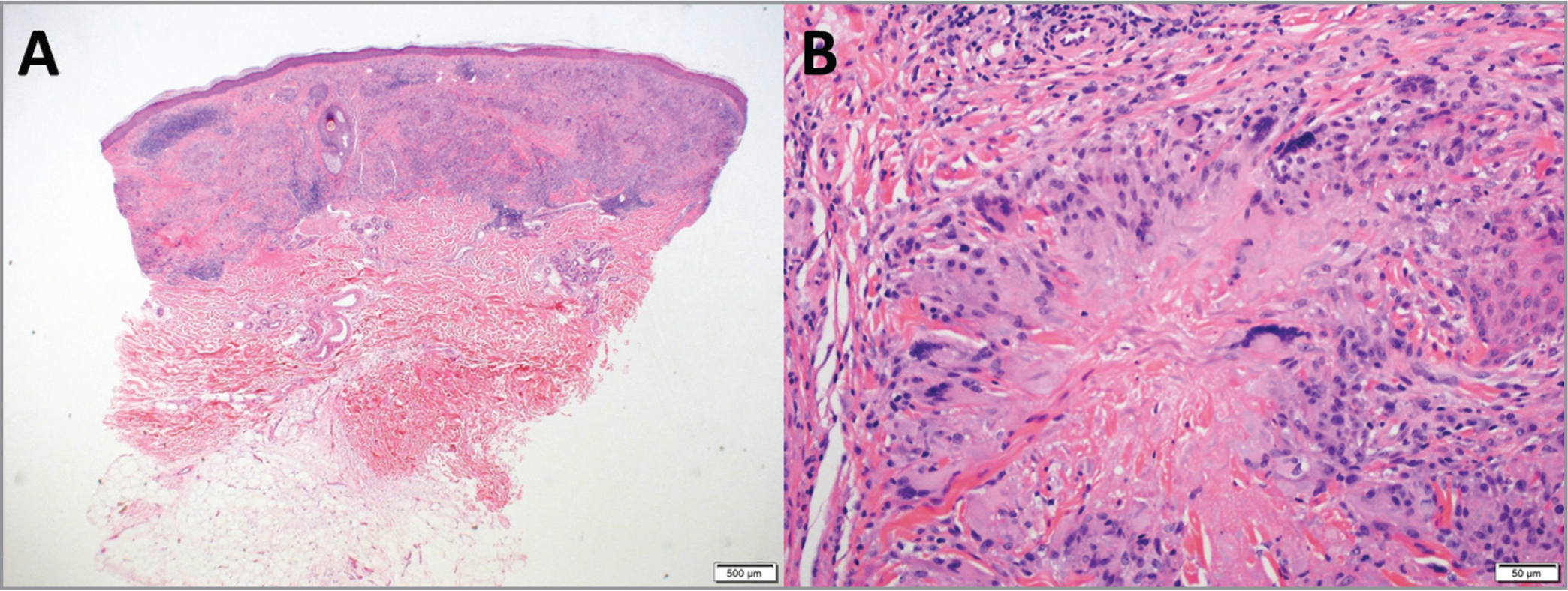 Left forearm skin lesion biopsy shows in low power (A; hematoxylin-eosin stain; original magnification × 20) granulomatous inflammatory infiltrate involving the upper- and mid-dermis. Higher-power view (B; hematoxylin-eosin stain; original magnification × 200) reveals palisading of histiocytes and multinucleated giant cells around area of necrobiosis characteristic of granuloma annulare.