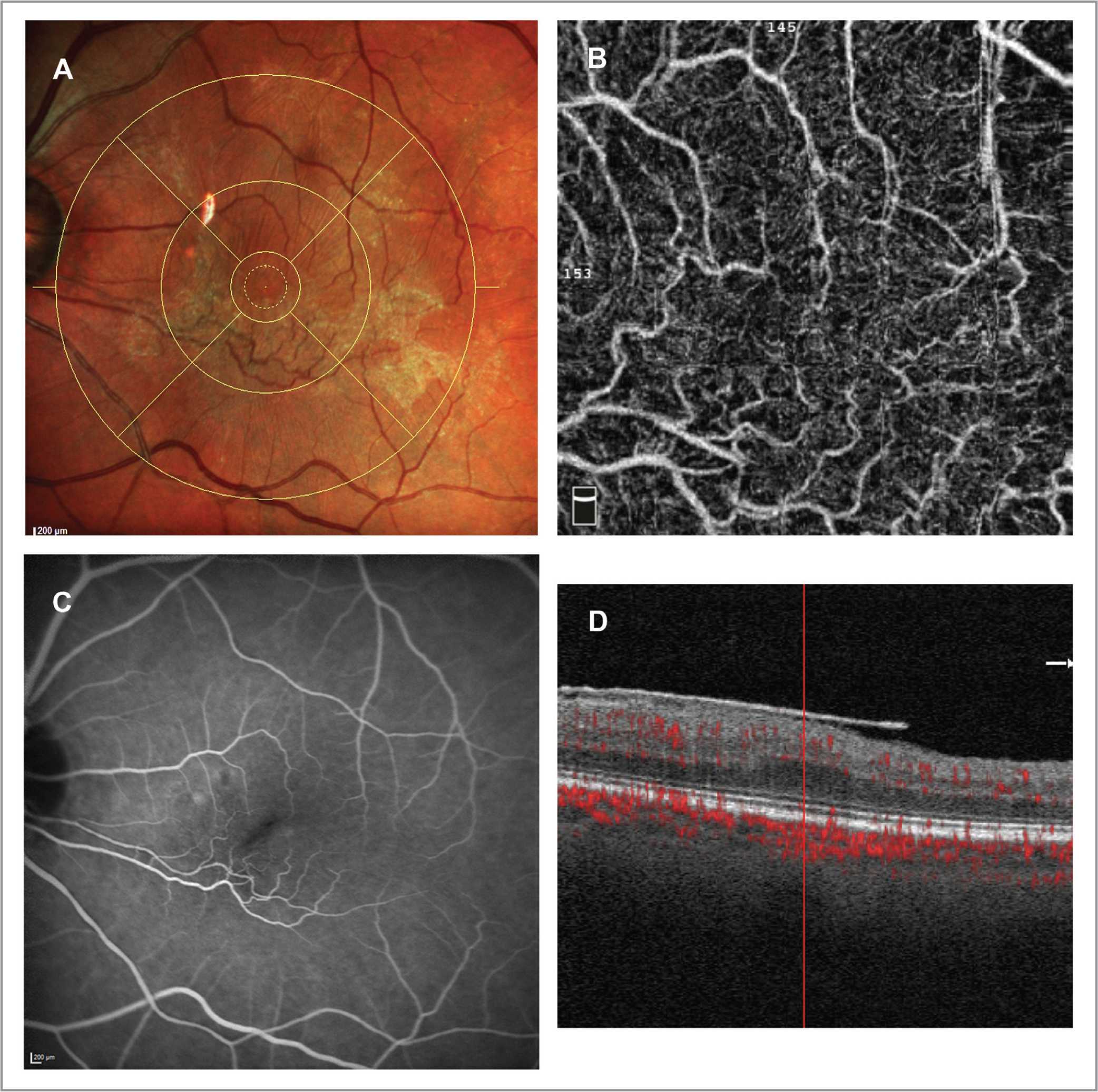 (A) demonstrates an Early Treatment Diabetic Retinopathy Study circle overlay with a 1-mm inner diameter. The total membrane score is 5 (2 for each horizontal quadrant, 1 for the inferior quadrant, and 0 for the superior quadrant). In the optical coherence tomography angiography (OCTA) image, the foveal avascular zone (FAZ) is absent, totally vascularized (B). The FAZ change is also apparent in fundus angiography, seen as an oblique slit running toward the inferior-nasal macula (C). The spectral-domain OCT image cutting through the center of fovea shows loss of foveal pit with some thickening of the central fovea secondary to the epiretinal membrane (D). Note, the signal strength index of the OCTA image is 62 despite duplication of some retinal vessels.