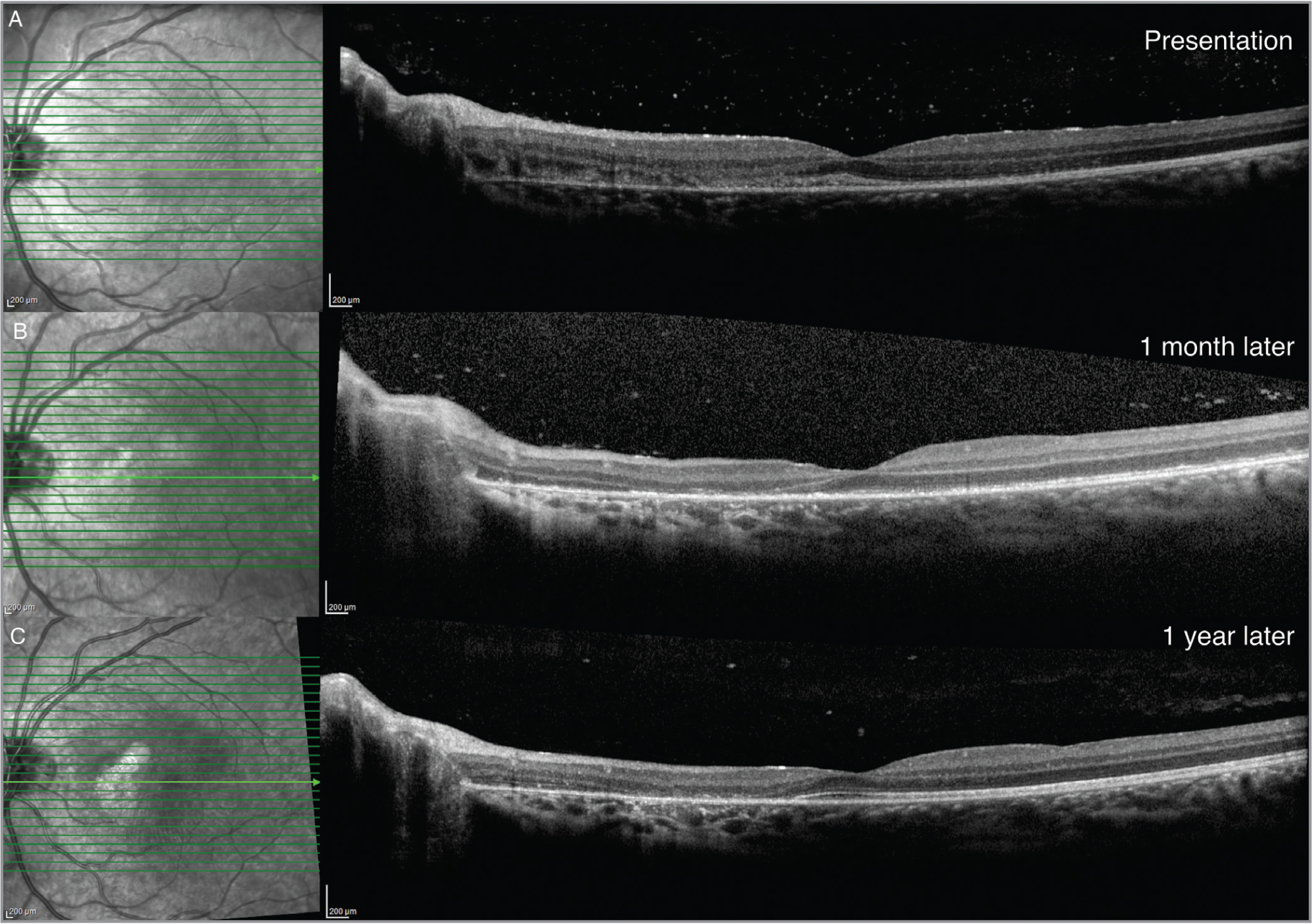 Case 1: Spectral-domain optical coherence tomography (A) at presentation showing loss of reflection in the cone outer segment tips, inner segment/outer segment junction, and external limiting membrane (B) 1 month after injury and (C) 1 year later showing persistent outer retinal defects.