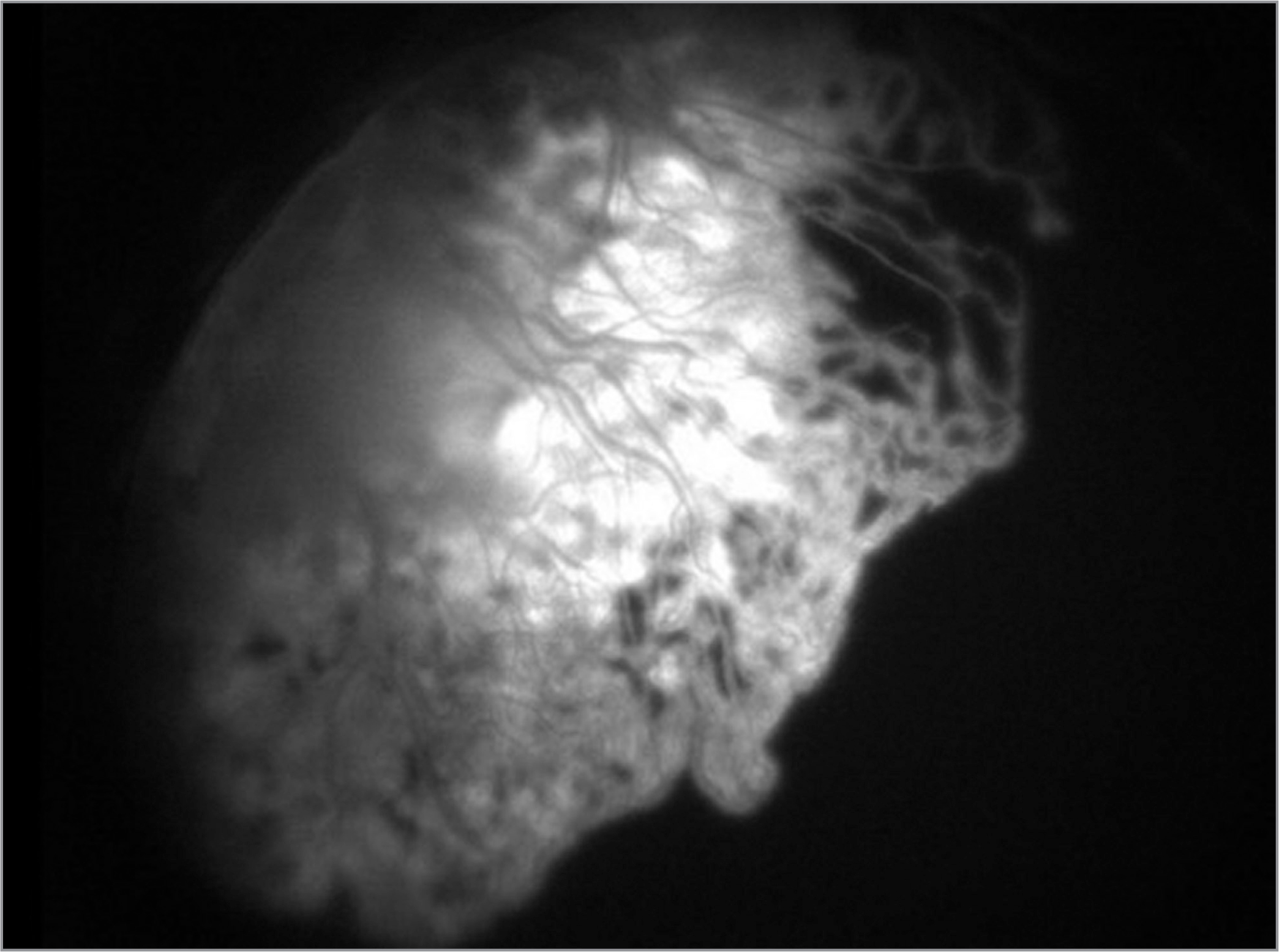 Fluorescein angiography demonstrated early filling with mid-phase staining of the fibrovascular membrane.