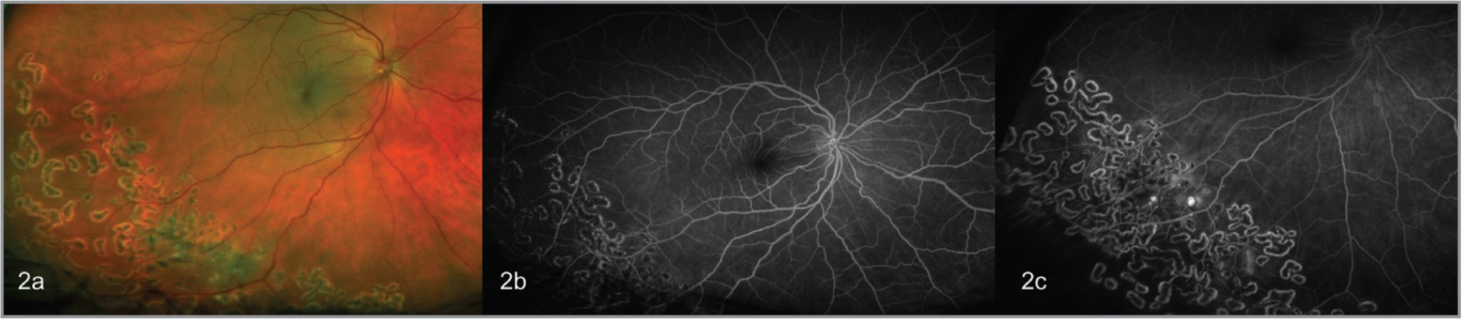 Multimodal ophthalmic imaging upon follow-up showing improved exudation and aneurysmal changes in the bed of ablative laser therapy on fundus photography (a) and fluorescein angiography (b, c).