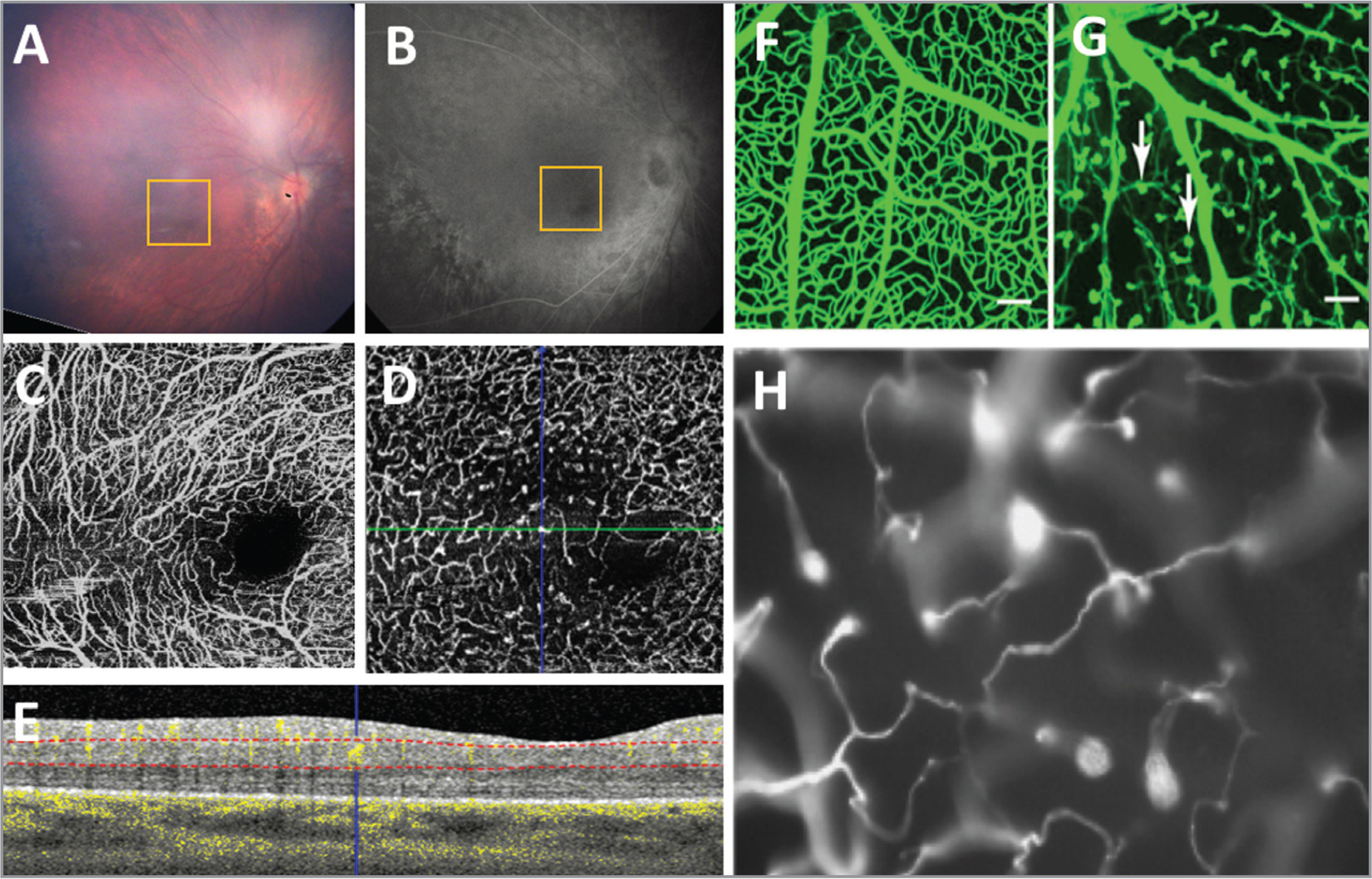 A 19-year-old, white, term-born male was diagnosed at 1.5 years old with familial exudative vitreoretinopathy (FEVR). Genetic testing showed a heterozygous mutation in the Wnt pathway LRP5 gene. The right eye (A, fundus photo; B, fluorescein angiography [FA]) underwent peripheral laser and cryotherapy. Optical coherence tomography angiography (OCTA) of the macula showed vessel dilation, areas of nonuniform vessel density, vascular loops, and straightened vessels in the superficial vascular complex (SVC) (C). The deep vascular complex (DVC) had a disorganized pattern, curls and loops, areas of decreased density, and characteristic end bulbs (D). (E) An OCT/OCTA B-scan of the location of the green line in (D) is shown, with the blue crosshair over one of the end bulbs. The dotted red lines indicate the segmentation of the retinal layers used to form the en face OCTA image of the DVC. The pattern seen in the patient resembles that of vasculature in mutant mice with defective Wnt signaling (F–H). (F, G) Image adapted from Ye et al.31 showing a wildtype (WT) mouse compared to a Frizzled4 knockout (FZ4−/−) mouse with white arrows pointing to clusters of endothelial cells only partially penetrating into the retina. (H) Image adapted from Xia et al.21 demonstrating incomplete vascularization with attenuated vessels in a homozygous r18 mutant mouse carrying a frameshift mutation in the LRP5 gene.