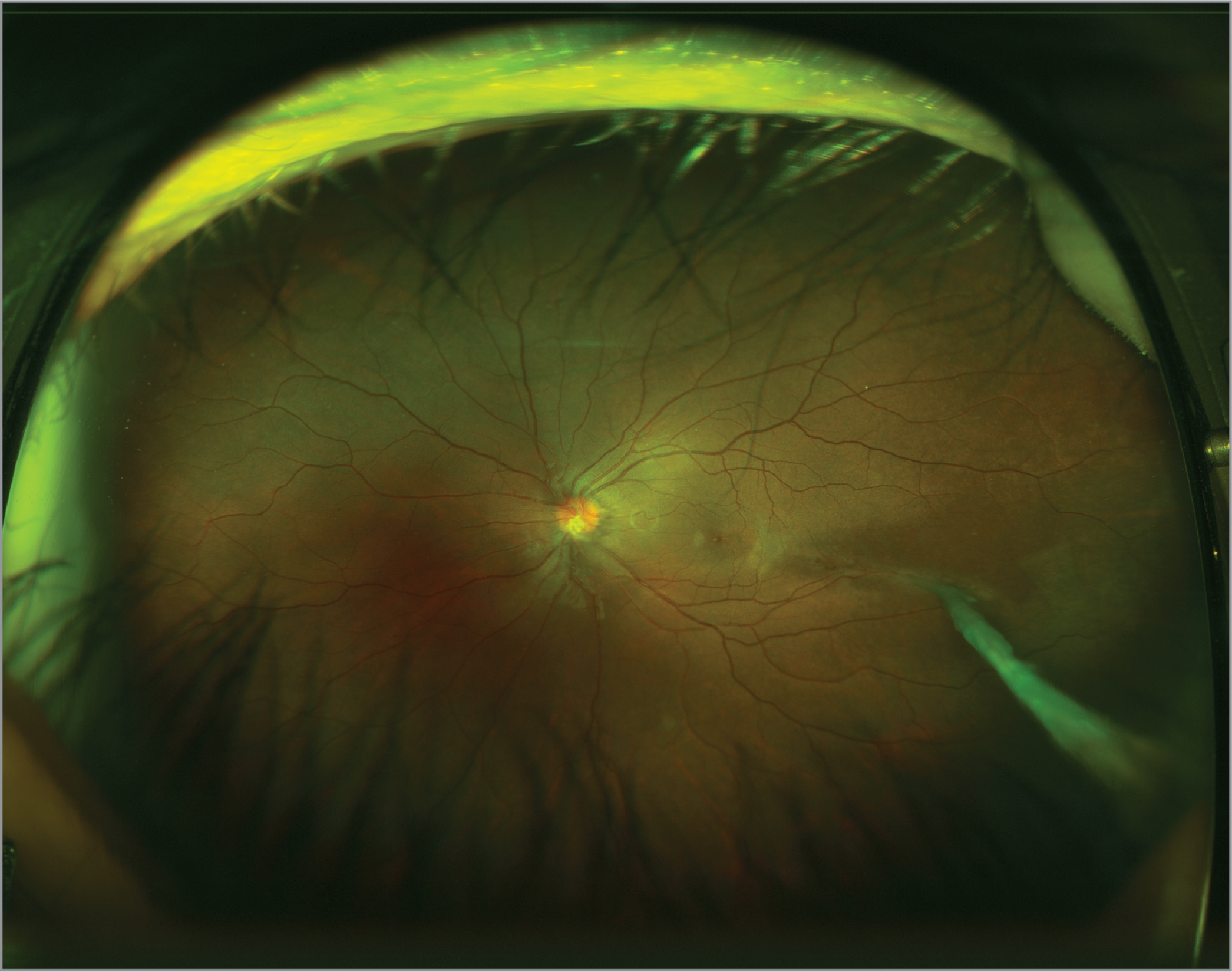 Residual vascular stalk extending antero-temporally in the retina of the left eye status post-vitrectomy and amputation of the primary stalk over the optic nerve head. Close evaluation demonstrates the residual stalk remnants as whitish fibrosis overlying the optic nerve head inferiorly.