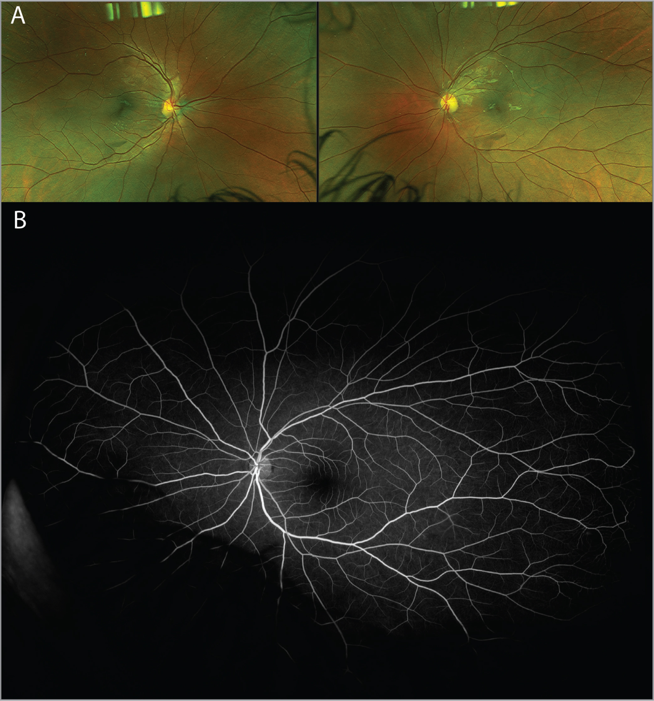 (A) Color fundus photography at 7 months after central retinal artery occlusion demonstrating no residual retinal whitening, hemorrhages, emboli, collaterals, or retinal neovascularization present in both eyes. Narrowing of retinal vessels in the left eye (OS). (B) Ultra-widefield fluorescein angiography at 7-months follow-up demonstrating normal filling times and complete retinal vascular filling without collateralization OS.