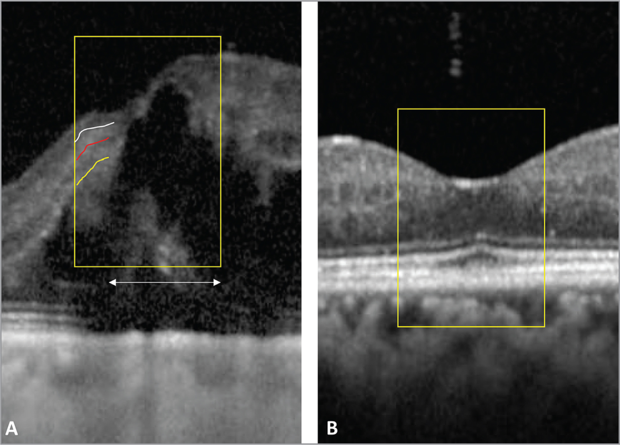 Optical coherence tomography showing foveal cystoid macular edema (CME) at baseline (A). The yellow box represents the central 1,000 μm and the discontinuities in the white (ganglion cell layer-inner plexiform layer [GCL-IPL] and inner nuclear layer [INL] interface), red (INL and outer plexiform layer [OPL] interface), and yellow (OPL and outer nuclear layer interface) lines represent the disorganized retinal inner layers (DRIL). The white double-ended arrow indicates the DRIL length. Visual acuity (VA) was 20/80 at baseline. Following anti-vascular endothelial growth factor intravitreal injections there was resolution of CME and at 13 months of follow-up, VA improved to 20/25 with resolution of DRIL (B).