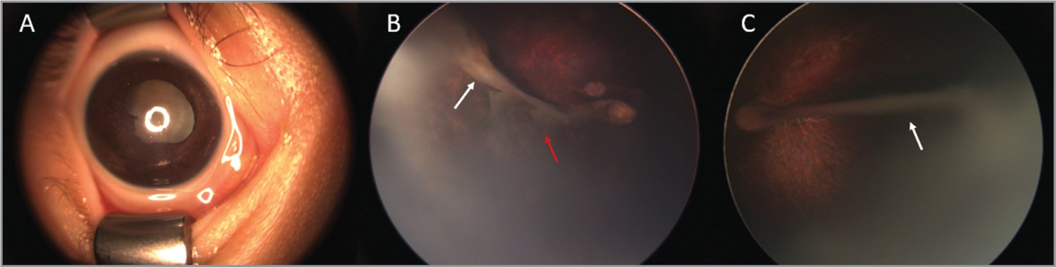 External photograph and fundus photographs of a 5-month-old girl with bilateral combined persistent fetal vasculature (Case 1), preoperatively. Focal corneal opacity with prominent cataract formation was observed (A). A large stalk (white arrow) extending from the optic nerve to the posterior lens capsule with local retinal traction and macular involvement (red arrow) in the right eye (B). Similarly, a retrolental stalk (white arrow) was also observed in the left eye, with minimal retinal traction (C).