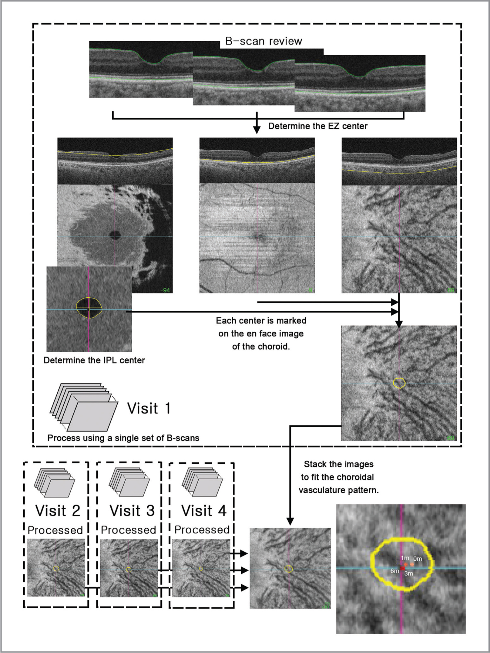 This method was used for measuring the displacement of the foveal center. The center of the ellipsoid zone (EZ) was marked in the en face image by reviewing all B-scans from optical coherence tomography (OCT) volume scanning. The center of the inner plexiform layer (IPL) was designated as the foveal depression shown in the en face image at the level of the IPL. Both centers were marked on the choroid en face image obtained from the same volume scan. These processes were performed using the OCT volume scan obtained at every visit. The en face images of the choroid were stacked to fit the choroidal vasculature pattern. Coordinates of the foveal centers were measured.