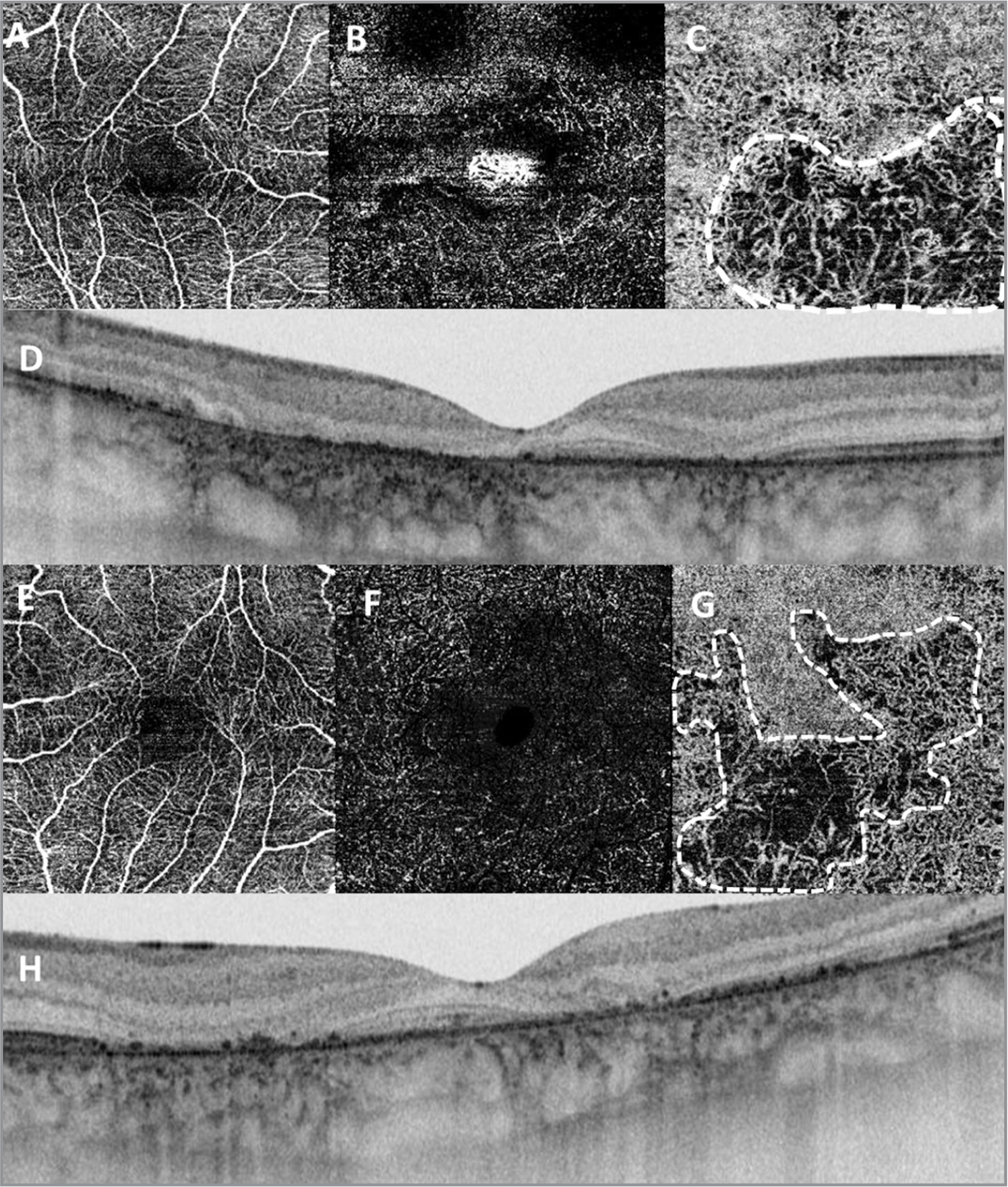 Optical coherence tomography angiography (OCTA) of patient No. 1. Swept-source OCTA. (A) Normal superficial plexus. (B) Deep retinal vascular plexus with some voids of vessels. (C) Choriocapillaris with large area of reduced perfusion (white dotted area).