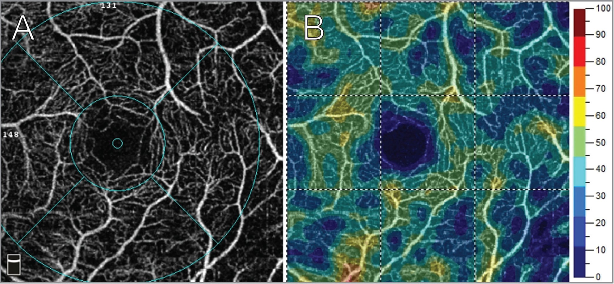 (A) 3 mm × 3 mm optical coherence tomography angiography image of the left macular superficial capillary plexus in a patient with retinitis pigmentosa. (B) Vessel density map indicating percentage density of blood vessels. Parafoveal capillary perfusion density was measured at 40.74%.