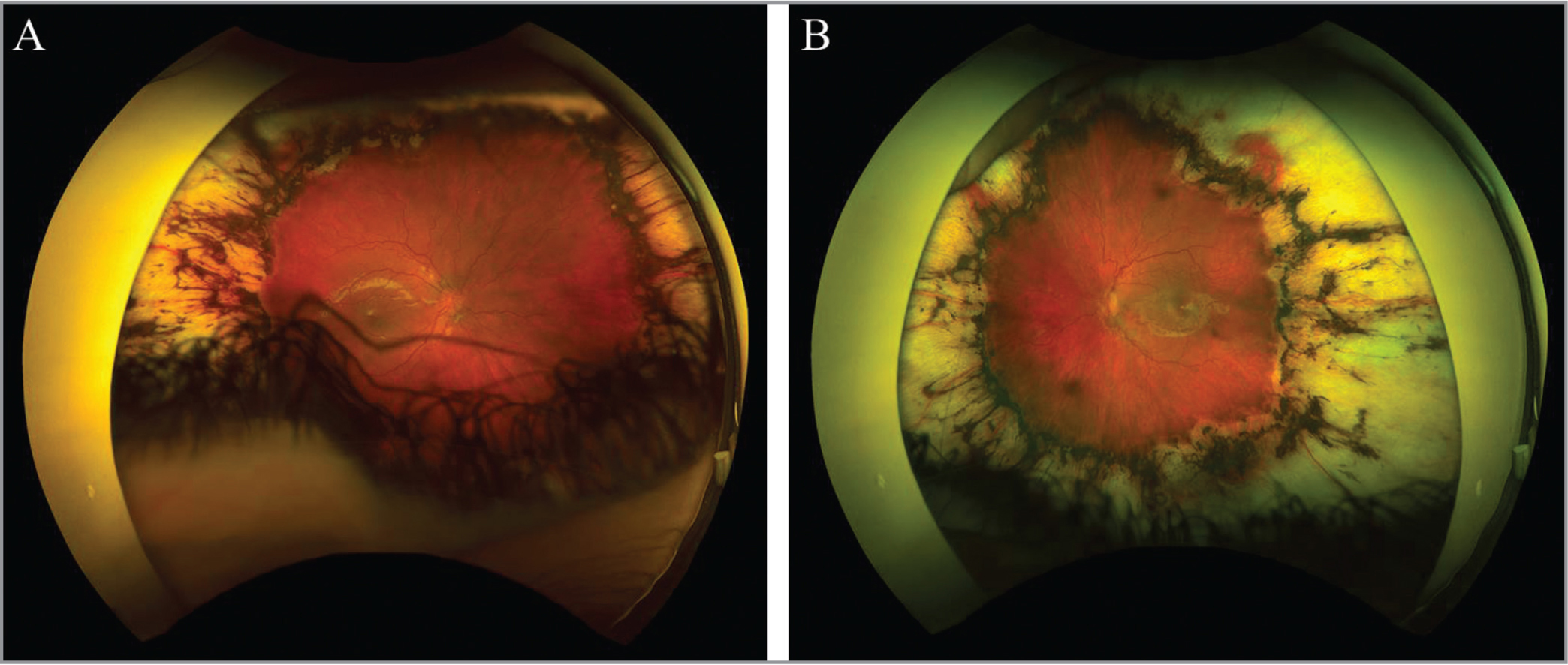 Presence of persistent vascular tortuosity in all four quadrants of the retina at age 5 in the right (A) and left eyes (B).