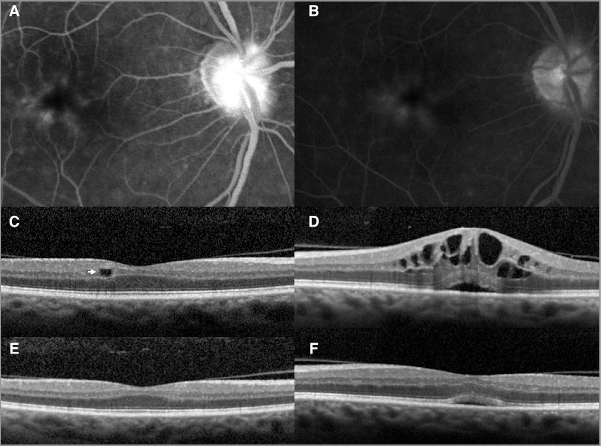Isolated inner nuclear layer (INL) cystic changes in the phakic fellow eye of a patient with pseudophakic cystoid macular edema (CME). (A) Arteriovenous phase fluorescein angiogram demonstrating mid-capillary perifoveal leakage 6 weeks after uncomplicated cataract extraction in the contralateral eye. (B) Recirculation phase demonstrating late and mild disc leakage. (C) Spectral-domain optical coherence tomography (SD-OCT) of the phakic unoperated eye displays isolated INL cysts (arrow). (D) The operative eye demonstrates typical pseudophakic CME. (E) Follow-up SD-OCT of phakic fellow eye demonstrating resolution of edema following treatment of and improved edema in the contralateral eye (F).