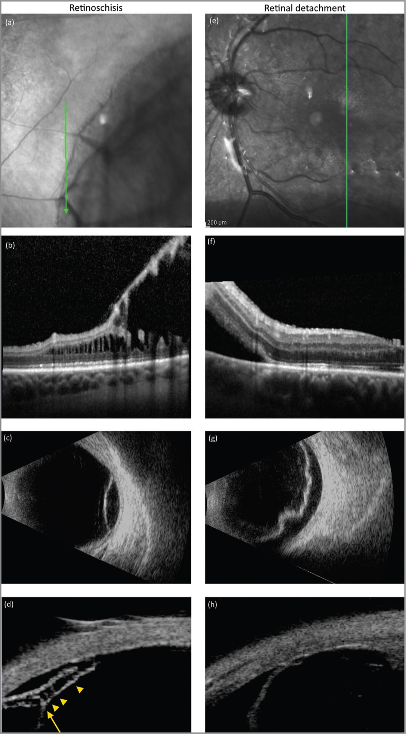 Comparison of multi-imaging sample cases of retinoschisis (a–d) and retinal detachment (e–h) showing infrared (a, e), optical coherence tomography (OCT) (b, f), ultrasonography B-scan (c, g), and ultrasound biomicroscopy (UBM) (d, h) images. The UBM image of the retinoschisis case (d) shows both splitting of the retinal layers (arrow) and intraretinal pillars (arrowheads), whereas the UBM of the retinal detachment case displays a single detached layer. These findings correlate well with the OCT image.