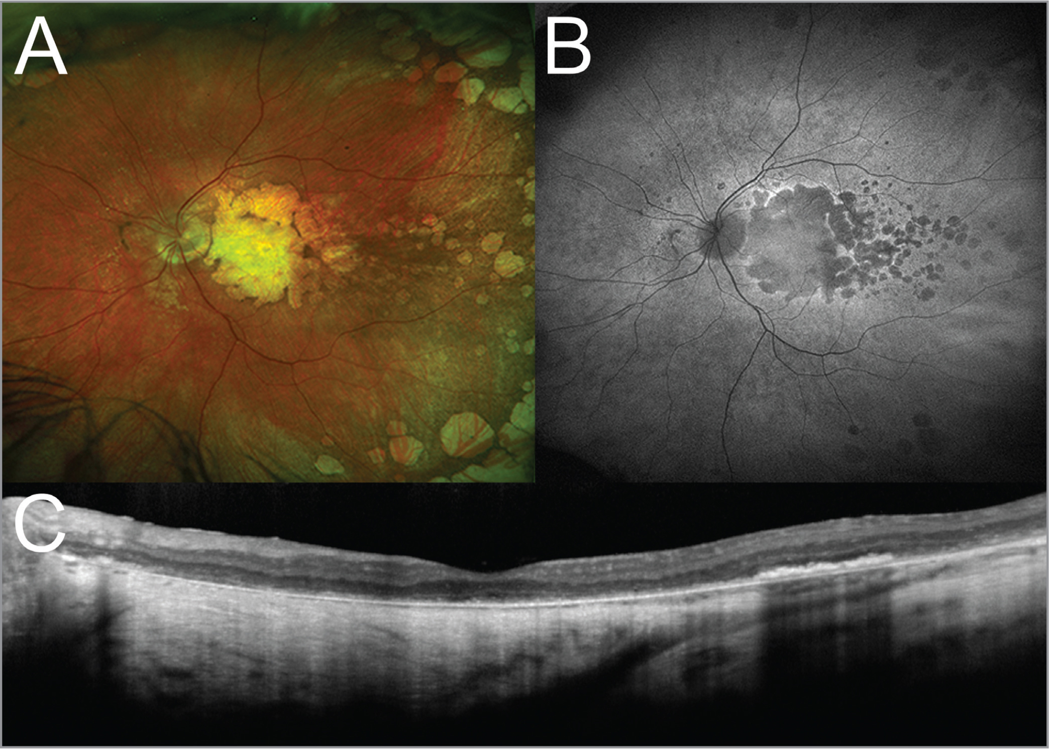 (A) Widefield pseudocolor scanning laser ophthalmoscopy revealed scalloped, atrophic patches in the macula and in the far periphery. (B) Widefield fundus autofluorescence imaging also reflected these findings with well-demarcated regions of hypoautofluorescence. (C) Optical coherence tomography imaging revealed diffuse atrophy of the outer retina, retinal pigment epithelium, and choroid. There was no evidence of current or prior choroidal neovascularization. Findings were comparable between eyes.