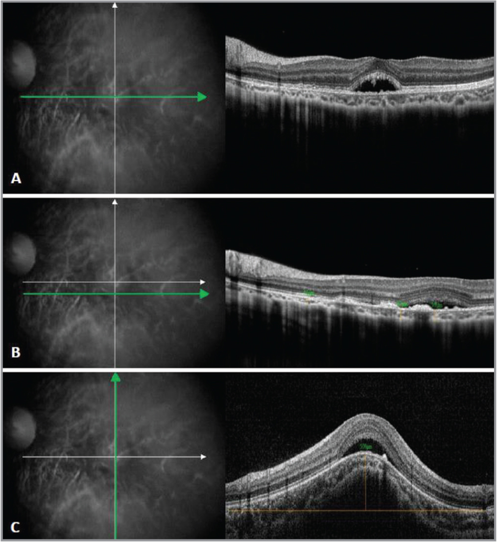 An enhanced depth imaging optical coherence tomography (OCT) of the macula in the left eye (OS) shows a dome-shaped elevation with choroidal thinning, subretinal fluid (SRF), and hyperreflective material at the outer retina. (A) SRF under the fovea with intraretinal and subretinal hyperreflective foci OS. (B) Deposits on the retinal pigment epithelium layer corresponding with the areas of hyperpigmentation, as seen on a fundus examination. (C) Vertical spectral-domain OCT scan shows a dome-shaped macula with a bulge height of 500 μm.