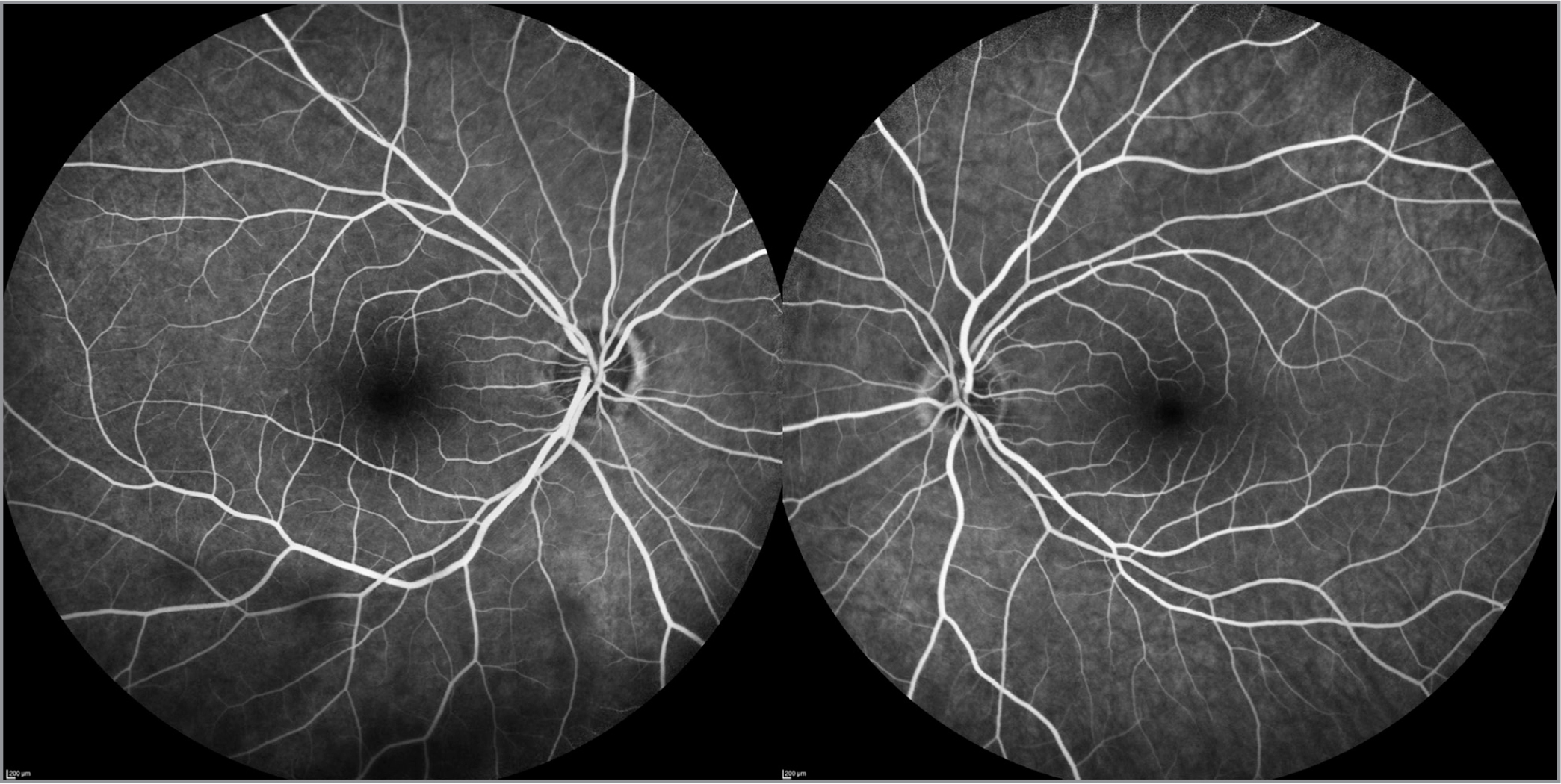 Late arterial phase fluorescein angiography at 55° acquired with scanning laser ophthalmoscopy shows normal retinal and choroidal perfusion of right (left panel) and left (right panel) eyes.