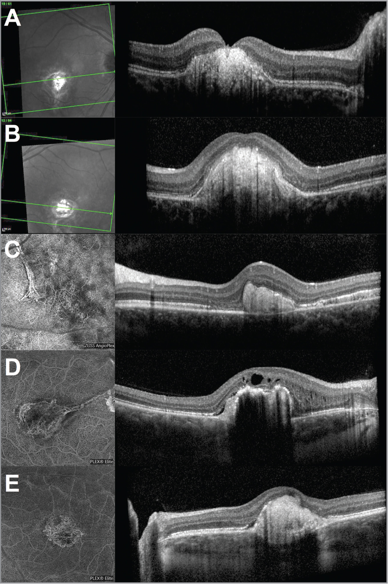 B-scan optical coherence tomography (OCT) and corresponding infrared imaging or OCT angiography (OCTA) at the end of follow-up. (A) Case 1 right eye. (B) Case 1 left eye. (C) Case 2 left eye. (D) Case 3 right eye. (E) Case 3 left eye. Serous retinal detachment and intraretinal cysts were totally absent in Case 1 (right and left eyes) and Case 2 (left eye). In Case 3, there was a chronical intraretinal cystic change in the right eye associated with a chronic, abrupt, tent-shaped subretinal detachment in both eyes that did not respond to anti-vascular endothelial growth factor injection. OCTA, when realized in patient, showed a decrease (C) or a stabilization of the neovascular membrane (D, E). However, OCTA was not performed during the follow-up in Case 1 (A, B).