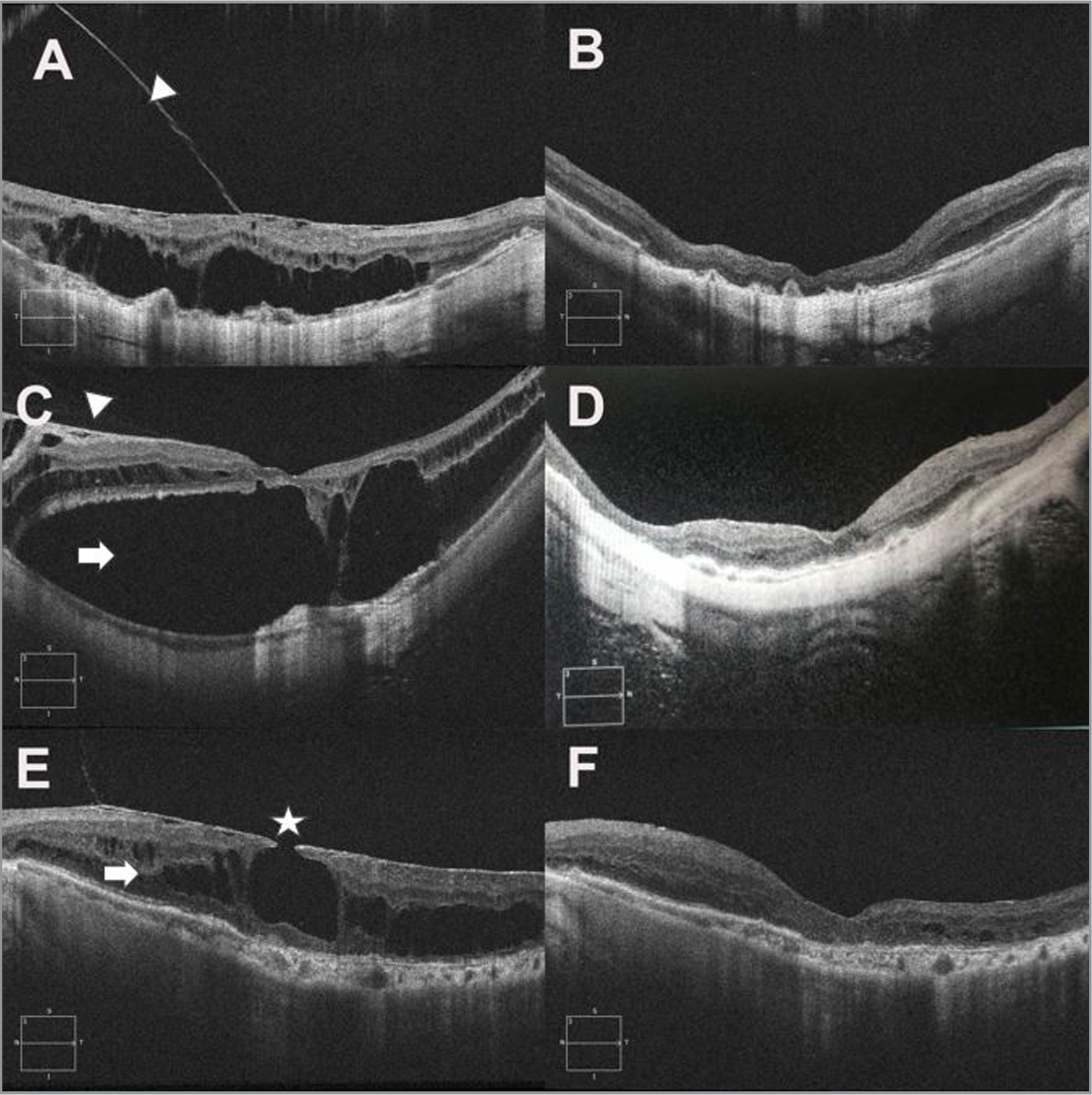 Typical optical coherence tomography images of preoperative and postoperative splitting recovery in the foveal retinoschisis (FS), foveal retinal detachment (FRD), and lamellar macular hole (LMH) groups. (A) Preoperative FS group. (B) The retinoschisis of the FS group resolved 1 month after the operation. (C) Preoperative FRD group. (D) The retinoschisis of the FRD group resolved 3 months after the operation. (E) Preoperative LMH group: myopic traction maculopathy is characterized by rupture of the retinal inner layer at the fovea (white star). (F) The retinoschisis of the LMH group resolved 1 month after the operation. A partially detached but intact epiretinal membrane (white arrowheads) and stable macular retinoschisis (white arrows) can be seen preoperatively.