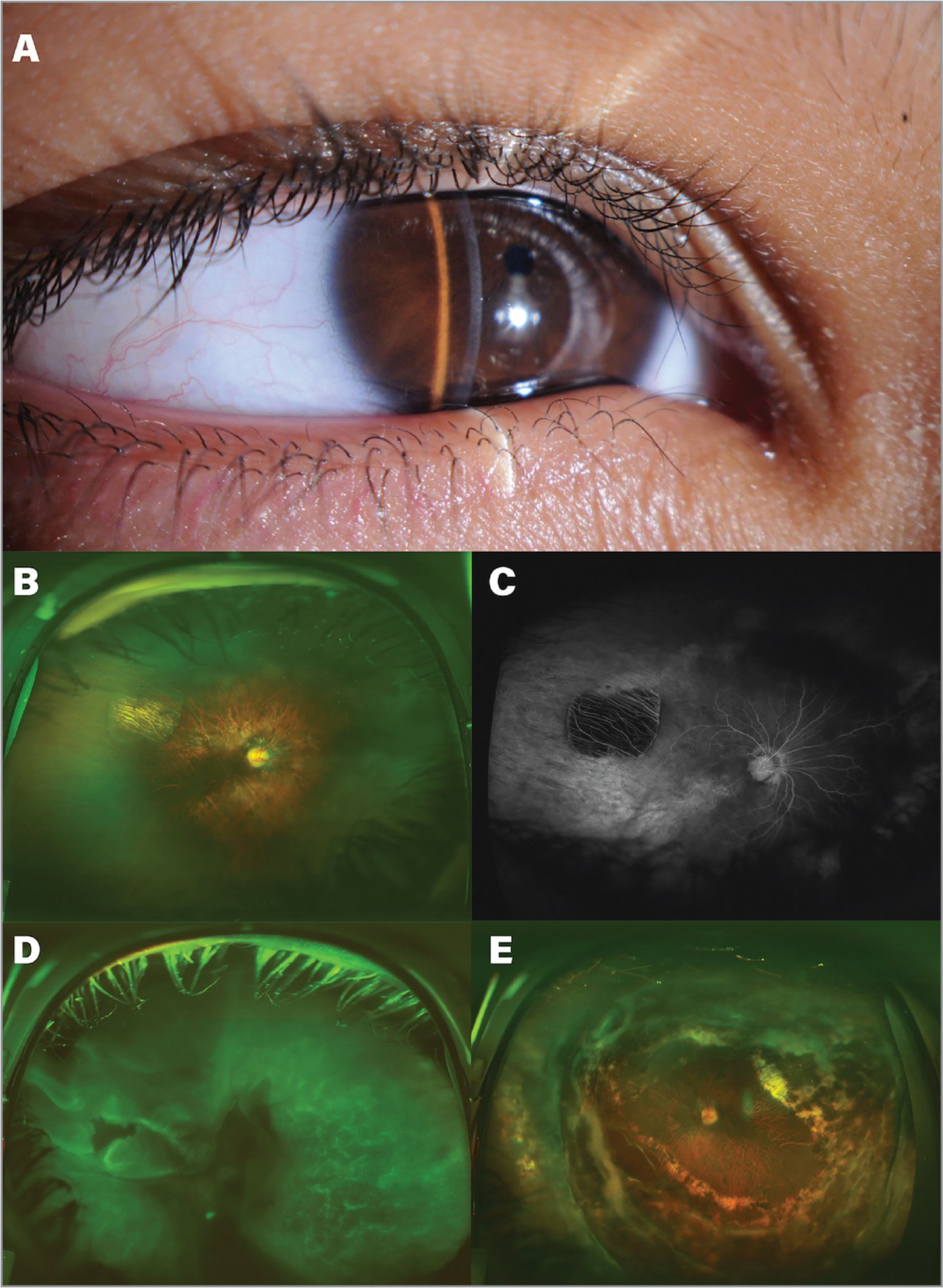Anterior segment and retinal features of an 8-year-old female (Patient 1) with Pierson syndrome. (A) Anterior segment photograph showing microcoria. (B) Right eye fundus photograph showing a tessellated fundus, optic disc pallor with unidentifiable cup, abnormal retinal vascular emanation, and parapapillary atrophy. A supero-temporal punched-out chorioretinal atrophy, avascular peripheral retina, aberrant course of temporal arcades, and straightening of nasal retinal vessels are also seen. (C) Right eye fluorescein angiography showing the lack of retinal perfusion beyond the macula temporally without a distinct vascularavascular junction. (D) Left eye fundus photograph showing total rhegmatogenous retinal detachment. (E) Left eye fundus photograph showing attached retina after surgical repair.