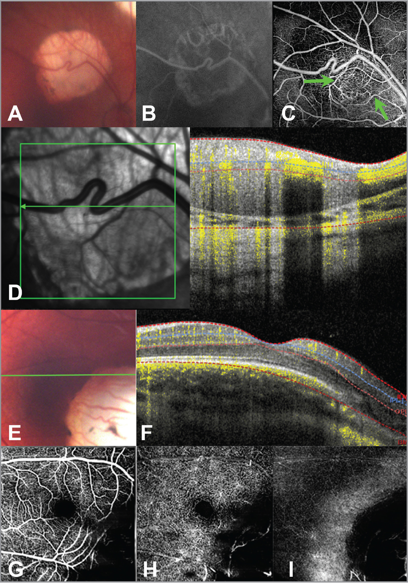 Multimodal imaging of Case 1. Fundus photo of a retinoblastoma lesion with type 2 regression in the right eye (A). Mid-phase fluorescein angiography of this lesion (B) did not reveal any obvious feeder vessels or intrinsic vascularity. (C) En face 20 ° × 20° optical coherence tomography angiography (OCTA) of the lesion revealed a circumferential network of feeder and draining vessels (arrows) around the noncalcified remnant of the tumor and prominent intrinsic vascularity to this remnant. (D) OCT B-scan with flow overlay of the lesion. This lesion was treated with transpupillary thermotherapy. Fundus photo of the left eye (E) showing a portion of a retinoblastoma lesion with type 4 regression. A horizontal line scan with OCTA flow overlay (F) demonstrates lack of flow signal in the regressed tumor. En face 20° × 20° OCTA of this lesion showed minimal vascularity in the superficial vascular complex (G), deep vascular complex (H), and choriocapillaris (I). This lesion was observed.