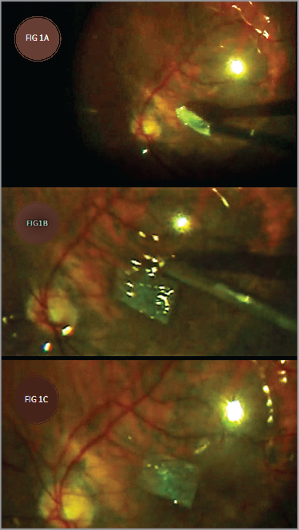 (A) Image showing handling and introduction of amniotic membrane graft (AMG) inside the vitreous cavity. (B) Showing backflush needle completing fluid-air exchange nearby the AMG. (C) Showing the final positioning of the membrane over the macular hole.
