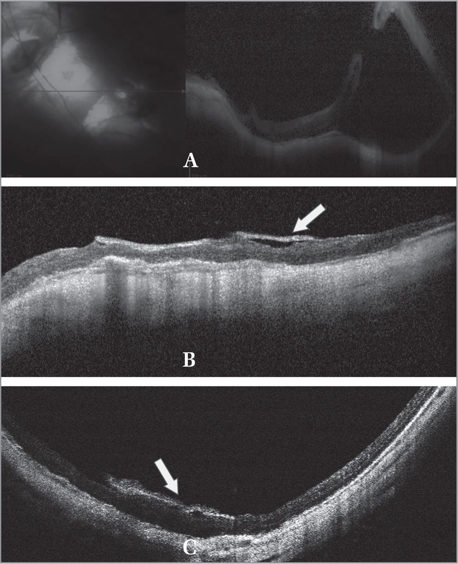 (A) Preoperative spectral-domain optical coherence tomography (SD-OCT) image showing recurrent retinal detachment (RD) with macular hole (MH). (B) One-month follow-up SD-OCT image of the macular area with sealed myopic MH-associated RD and overlying amniotic membrane graft (AMG) with good apposition to the edges of the MMH (white arrow). (C) Six-month follow-up SD-OCT image of the macular area with maintained sealed MMH and AMG starting to dissolve but still seen in place (white arrow).