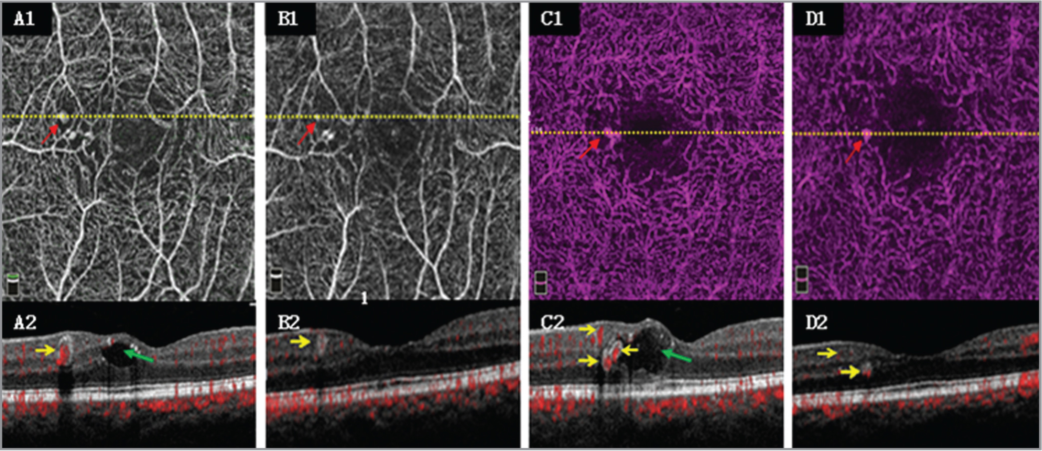 Case 1. Patient 2, a 71-year-old man, left eye. The left eye received three anti-vascular endothelial growth factors injections. (A1, A2, C1, C2) Baseline superficial and deep images, respectively. (B1, B2, D1, D2) Final images. Optical coherence tomography angiography (OCTA) B-scan images correspond to the section line (yellow dotted line) in the OCTA enface images. Comparing the final images with the baseline, OCTA enface images show that two hot spots were smaller (red arrow). OCTA B-scan images show that the retinal edema (green arrow) and one hot spot disappeared, whereas three hot spots became smaller with less blood flow signal (yellow arrow).