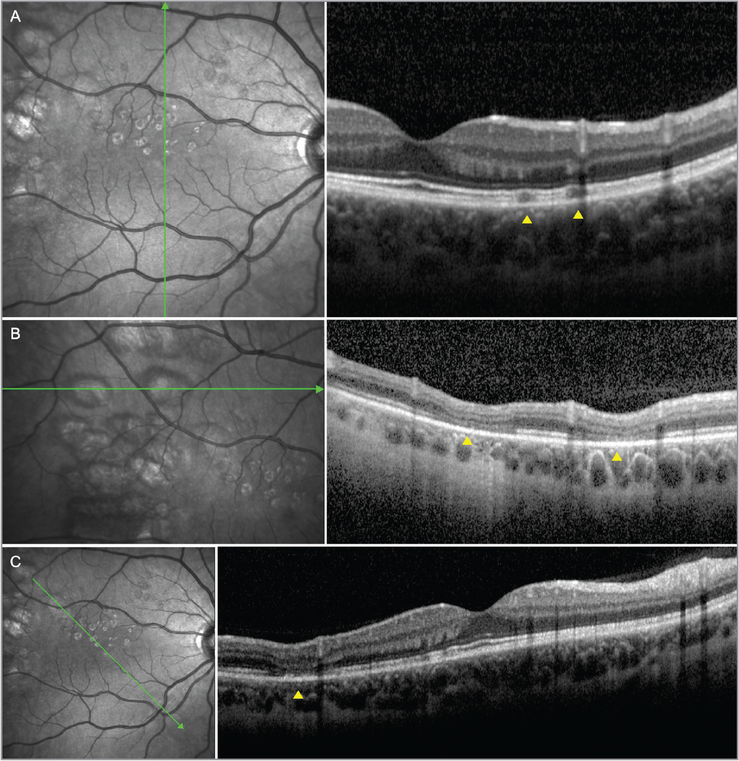 Spectral-domain optical coherence tomography in congenital grouped albinotic spots. Several scans over the smaller (A) and larger (B, C) albinotic spots show a preserved retinal pigment epithelium layer and atrophic changes in the outer retinal layers (yellow arrow heads).