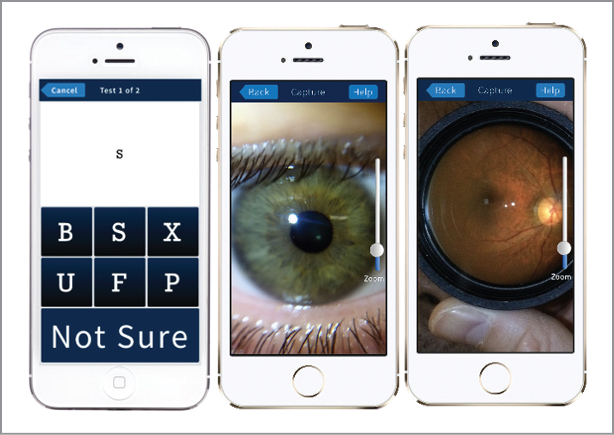 Screen shots of the visual acuity (VA) testing app used with the Paxos Scope. (Left) VA measurement using an interactive alphabet letter match. (Middle) An example of an anterior segment photograph captured with the Paxos Scope adapter. (Right) An example of a dilated fundus photograph taken with the same adapter. Photographs and data collected through the app are securely uploaded through a HIPAA-compliant telemedicine platform (Verana Health, formerly Digisight Technologies).