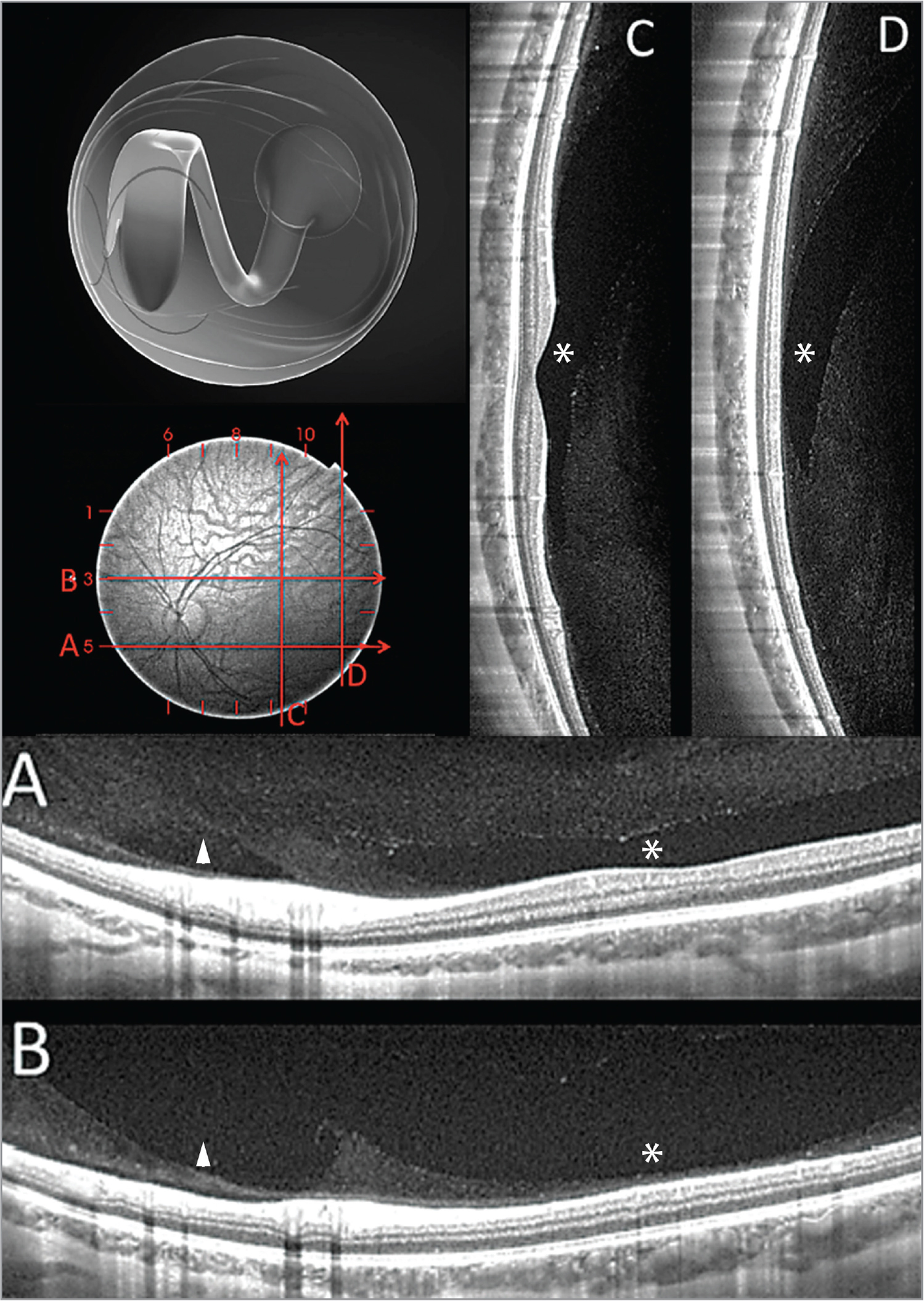 """The top left image depicts schematically how the premacular bursa and prepapillary gap fuse at a variable distance from the optic nerve in the majority of adult eyes and is limited inferiorly but extends superiorly. These spaces can be readily seen on spectral-domain optical coherence tomography (OCT) and swept-source OCT. The horizontal B-scan below the optic nerve (A) shows how the area of Martegiani (the posterior portion of the prepapillary gap overlying the optic nerve head) is separated from the bursa (asterisk) by formed vitreous – the """"septum interpapillomaculare"""" of Worst. The horizontal B-scan above the optic nerve (B) shows that the two spaces have fused, but a ridge persists as a legacy of the septum. The vertical B-scan in through the more central (C) and temporal macula (D) shows that the bursa (asterisk) is confined to the posterior pole inferiorly, but extends beyond the scan range superiorly. Adapted from: Engelbert M. A new understanding of vitreous structure. Review of Ophthalmology. 2016;01:60–64."""