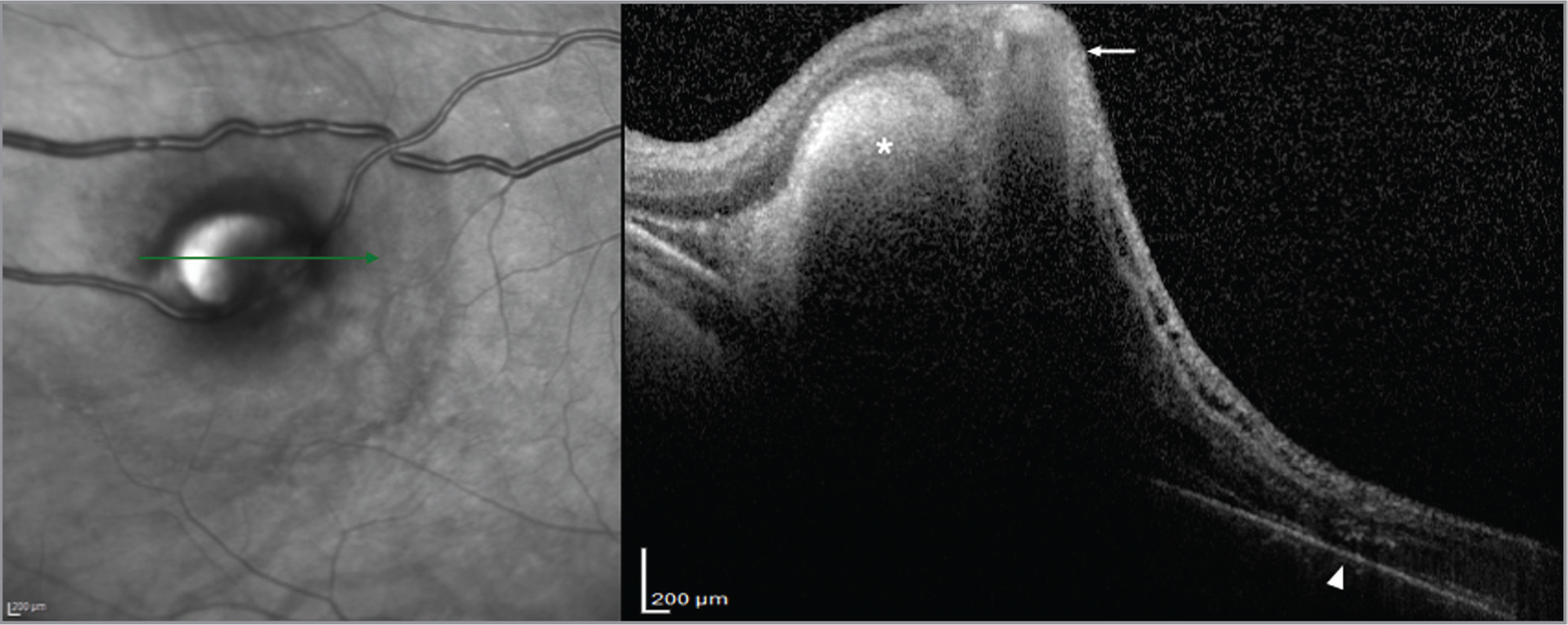Optical coherence tomography at the level of the microaneurysm demonstrates the dilated vascular lumen with hyperreflective             borders (white arrow), posterior shadowing, adjacent subretinal hemorrhage (asterisk), and outer retinal exudation (arrowhead).