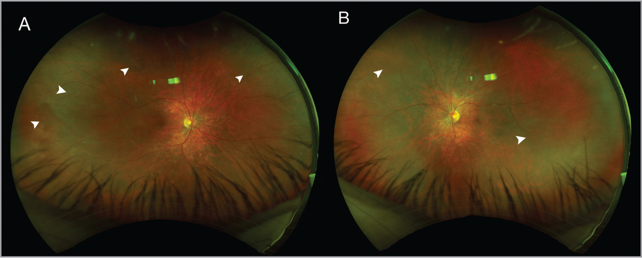 Color fundus photographs revealing slightly hyperemic discs and large multifocal serous retinal detachments bilaterally, marked by arrowheads. (A) Right eye. (B) Left eye.