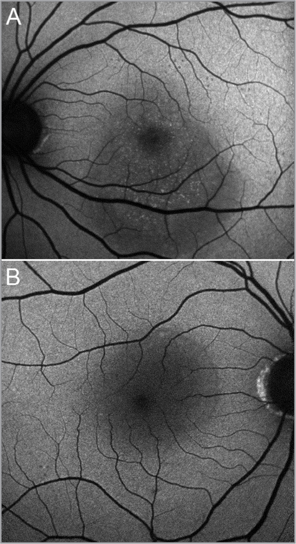 Lesion visibility in patients of different age and media opacity. (A) Female patient age: 39 years. Transparent optical media. Most of the test applications are visualized. (B) Male patient age: 57 years. A slight decrease in the transparency of optical media can be observed. Only laser applications applied with high power are visualized.