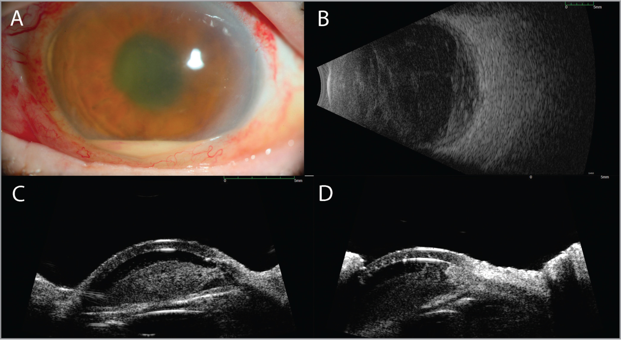 Clinical images of the left eye in an 81-year-old female who presented in November 2016 with 1 day of sudden-onset vision loss (light perception visual acuity on presentation) and evidence of intraocular inflammation. Slit-lamp photography (A) showed evidence of a hypopyon, anterior chamber fibrin, and diffuse conjunctival injection. B-scan ultrasonography showed dense vitreous opacities and membrane formation (B), as well as dispersed anterior chamber opacities with a dense collection of tissue near the angle (C), best visualized in Panel D.