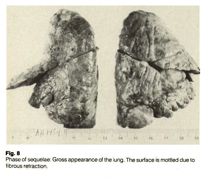 Fig. 8Phase of sequelae: Gross appearance of the iung. The surface is mottled due to fibrous retraction.