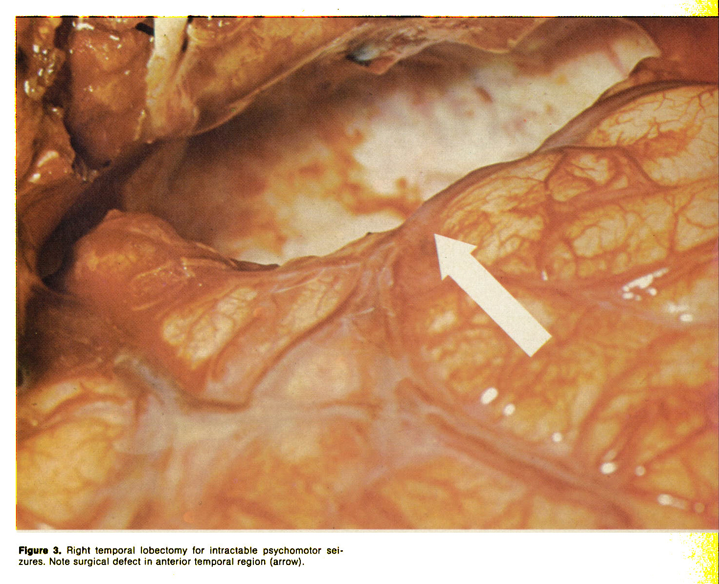 Figure 3. Right temporal lobectomy for intractable psychomotor seizures. Note surgical defect in anterior temporal region (arrow).