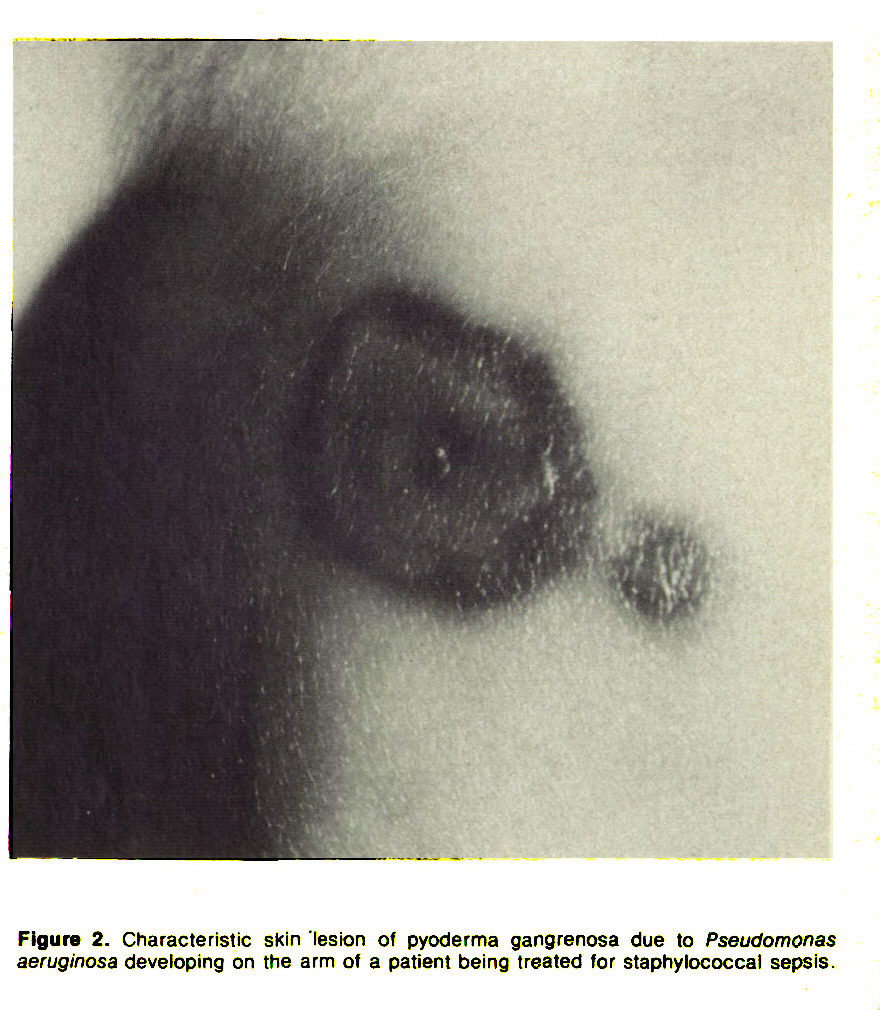 Figure 2. Characteristic skin lesion of pyoderma gangrenosa due to Pseudomonas aeruginosa developing on the arm of a patient being treated for staphylococcal sepsis.