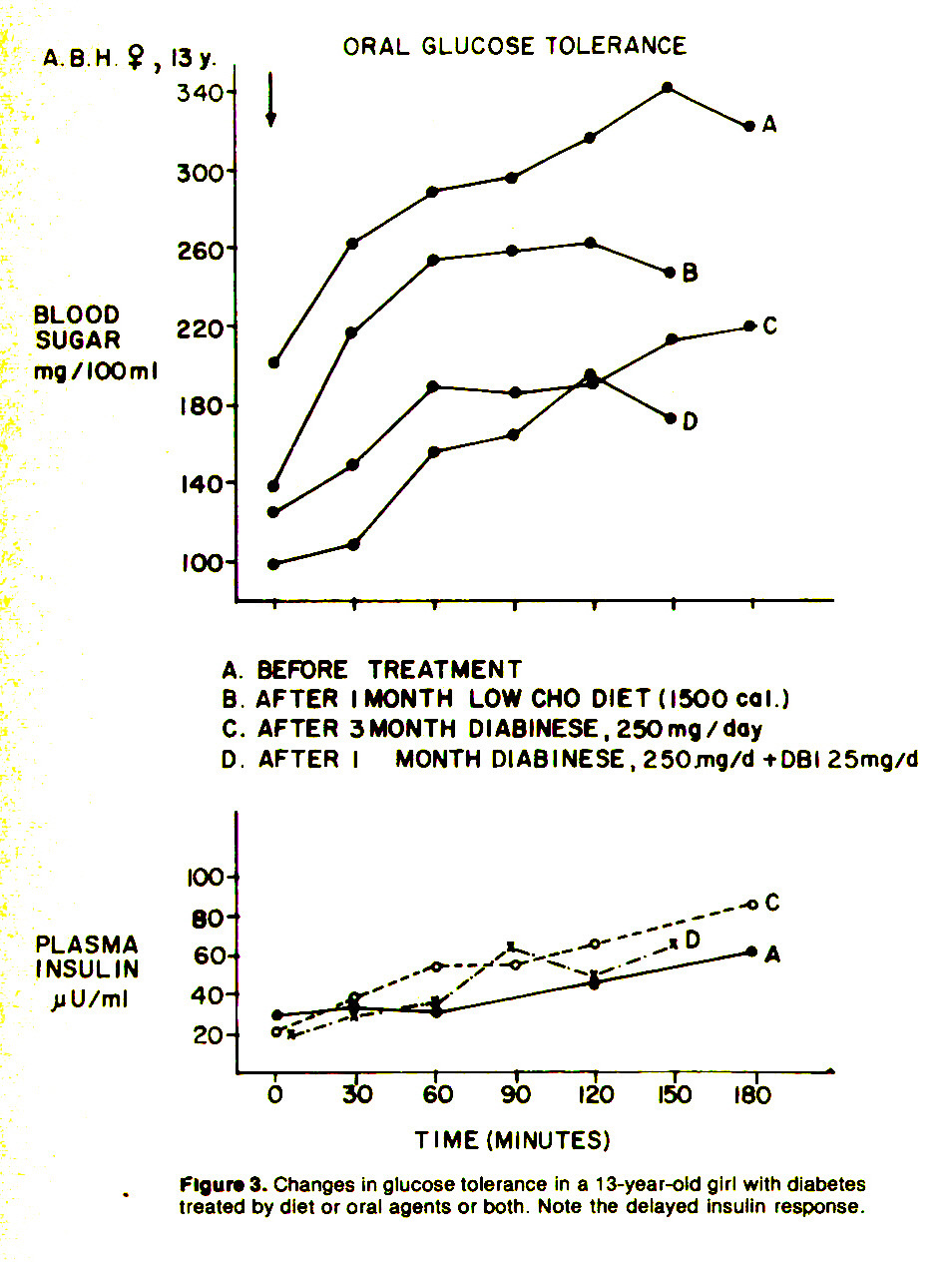 Figure 3. Changes in glucose tolerance in a 13-year-old girl with diabetes treated by diet or oral agents or both. Note the delayed insulin response.