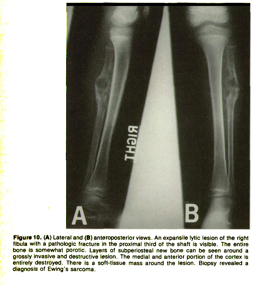 Figure 10. (A) Lateral and (B) anteroposterior views. An expansile lytic lesion of the right fibula with a pathologic fracture in the proximal third of the shaft is visible. The entire bone is somewhat poro tic. Layers of subperlosteal new bone can be seen around a grossly invasive and destructive lesion. The medial and anterior portion of the cortex Is entirely destroyed. There is a soft-tissue mass around the lesion. Biopsy revealed a diagnosis of Ewing's sarcoma.