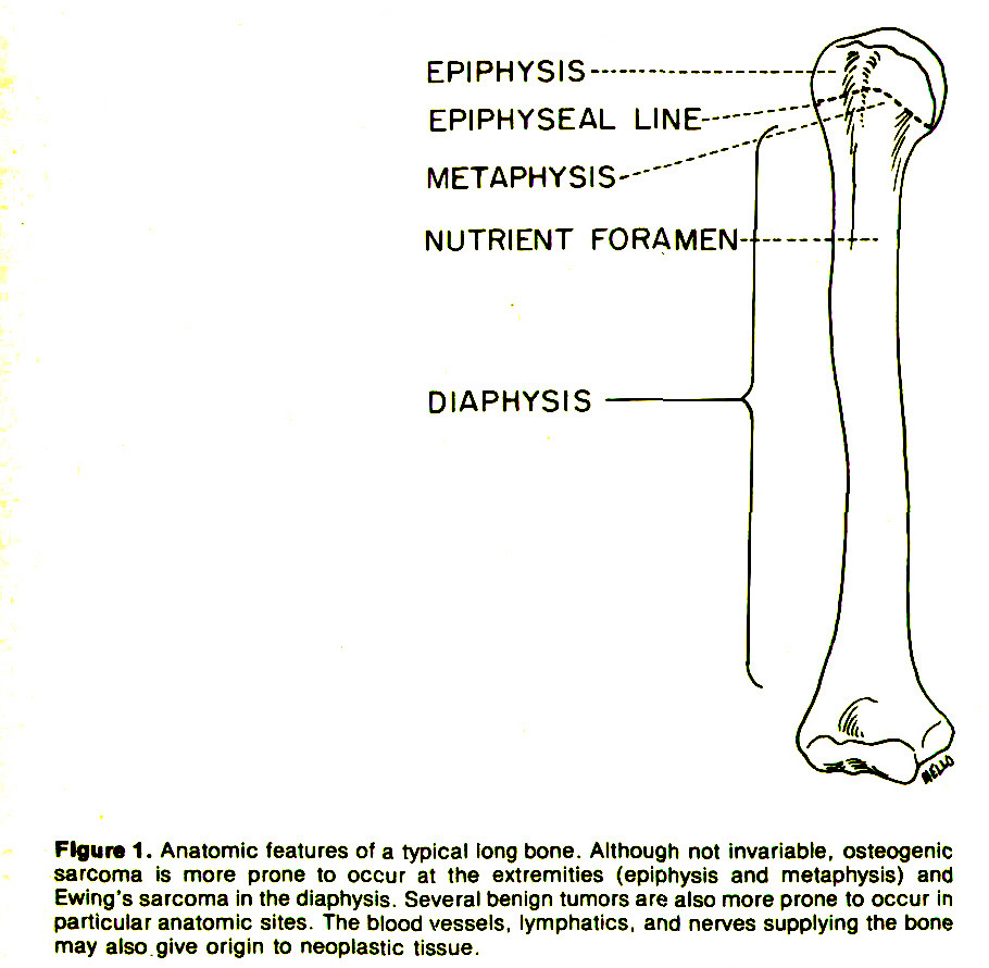 Figure 1. Anatomic features of a typical long bone. Although not invariable, osteogenic sarcoma is more prone to occur at the extremities (epiphysis and metaphysis) and Ewing's sarcoma in the diaphysis. Several benign tumors are also more prone to occur in particular anatomic sites. The blood vessels, lymphatics, and nerves supplying the bone may also give origin to neoplastic tissue.