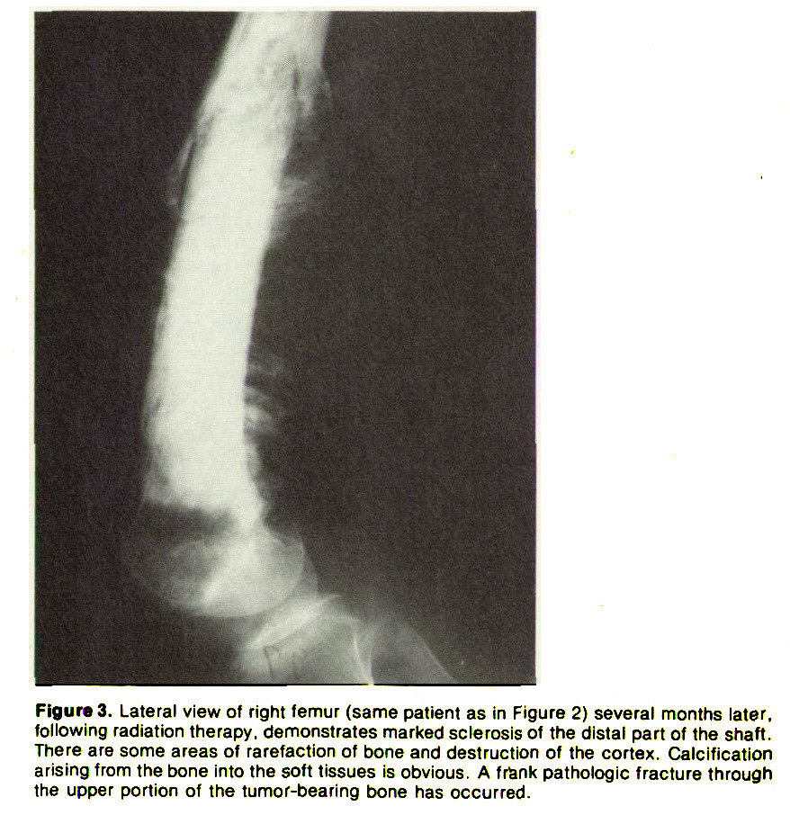 Figure 3. Lateral view of right femur (same patient as in Figure 2) several months later. following radiation therapy, demonstrates marked sclerosis ot the distal part of the shaft. There are some areas of rarefaction of bone and destruction of the cortex. Calcification arising from the bone into the soft tissues is obvious. A fr&nk pathologic fracture through the upper portion of the tumor-bearing bone has occurred.