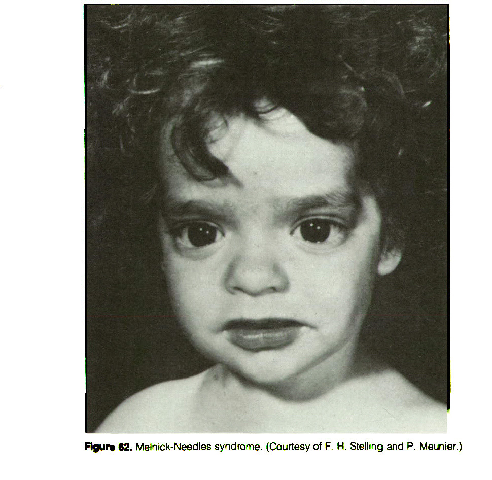 Figure 62. Melnick-Needles syndrome. (Courtesy of F. H. Stelling and P. Meunier.)