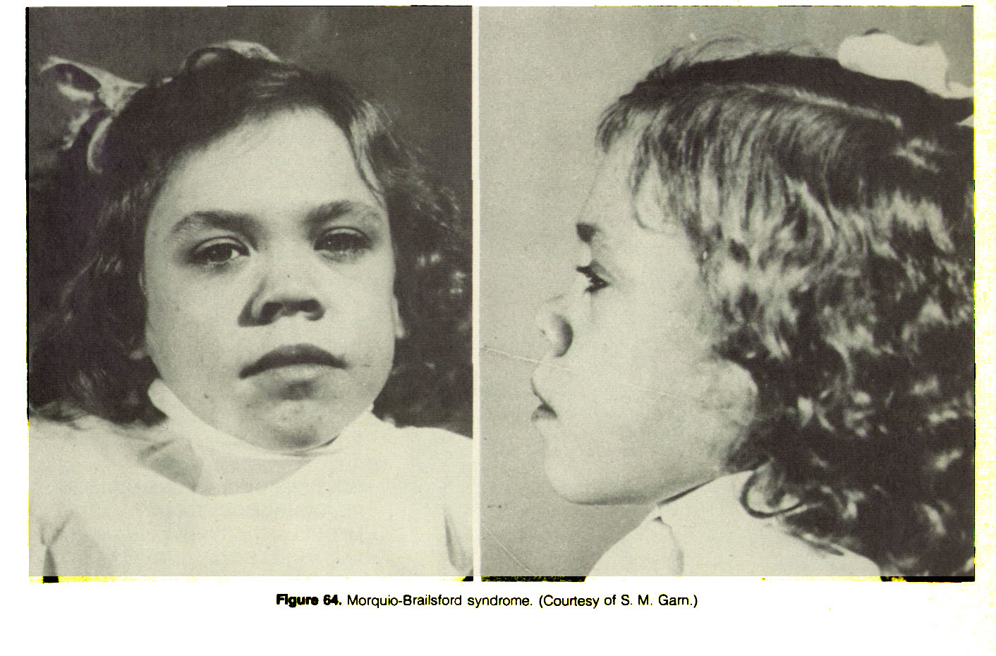 Figure 64. Morquio-Brailsford syndrome. (Courtesy of S. M. Garn.)
